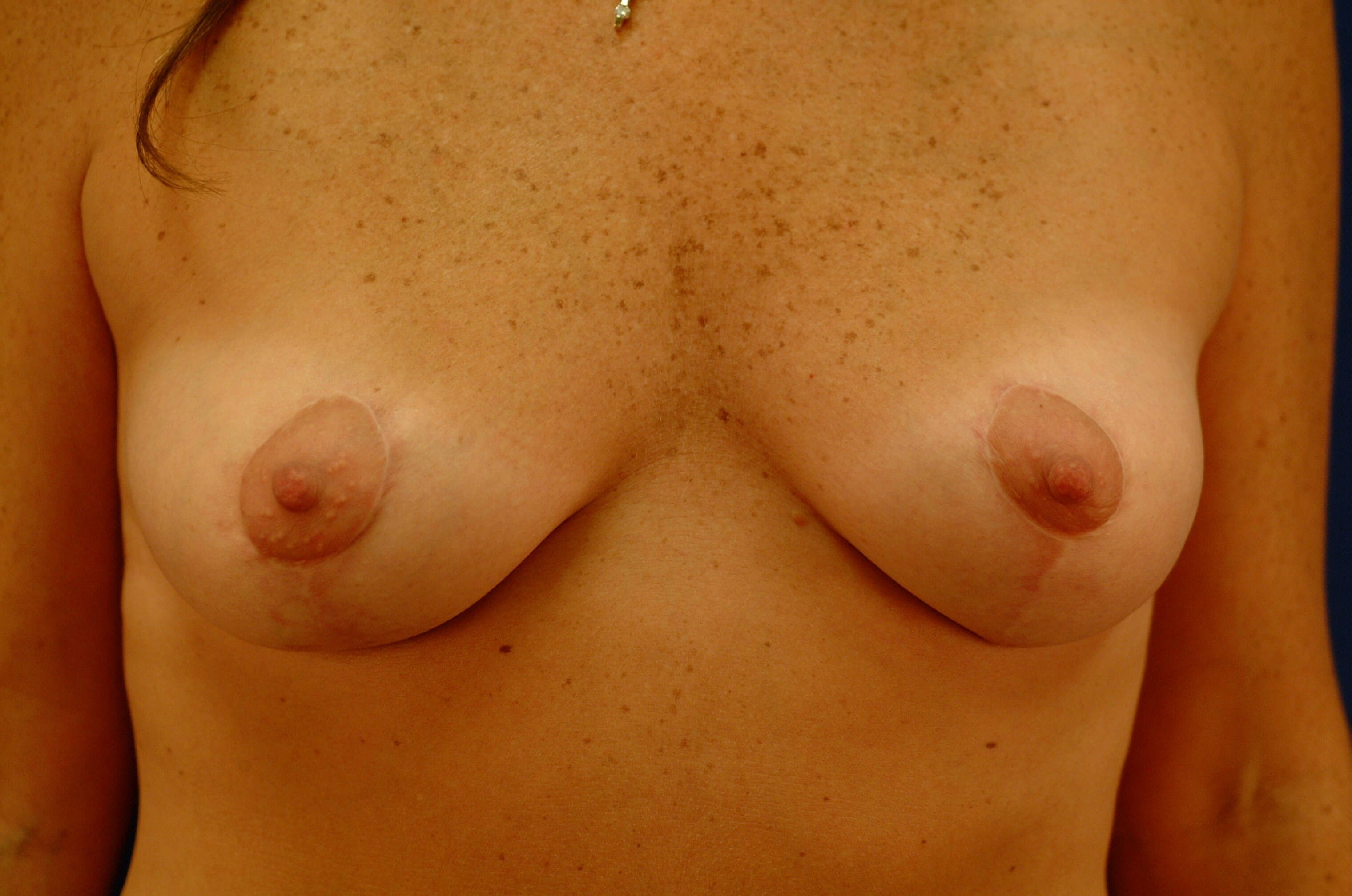 Newport Beach Breast Lift/Aug Before Front View