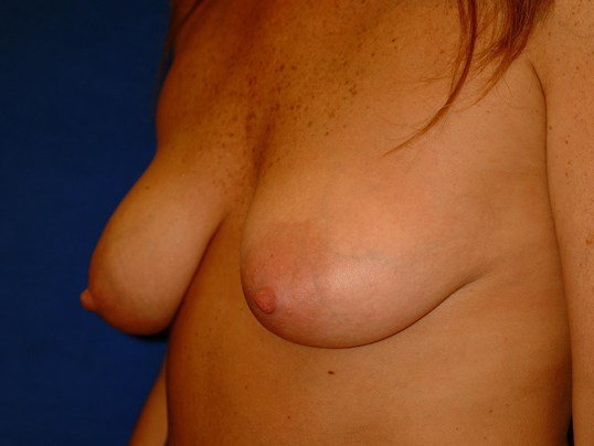 Newport Beach Breast Lift Oblique View Before