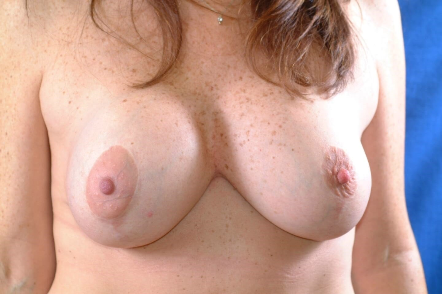 Newport Beach Breast Lift/Aug After Front View