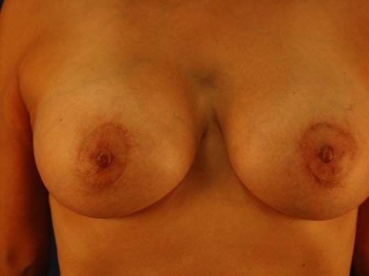 Newport Beach Breast Lift &Aug Front View After