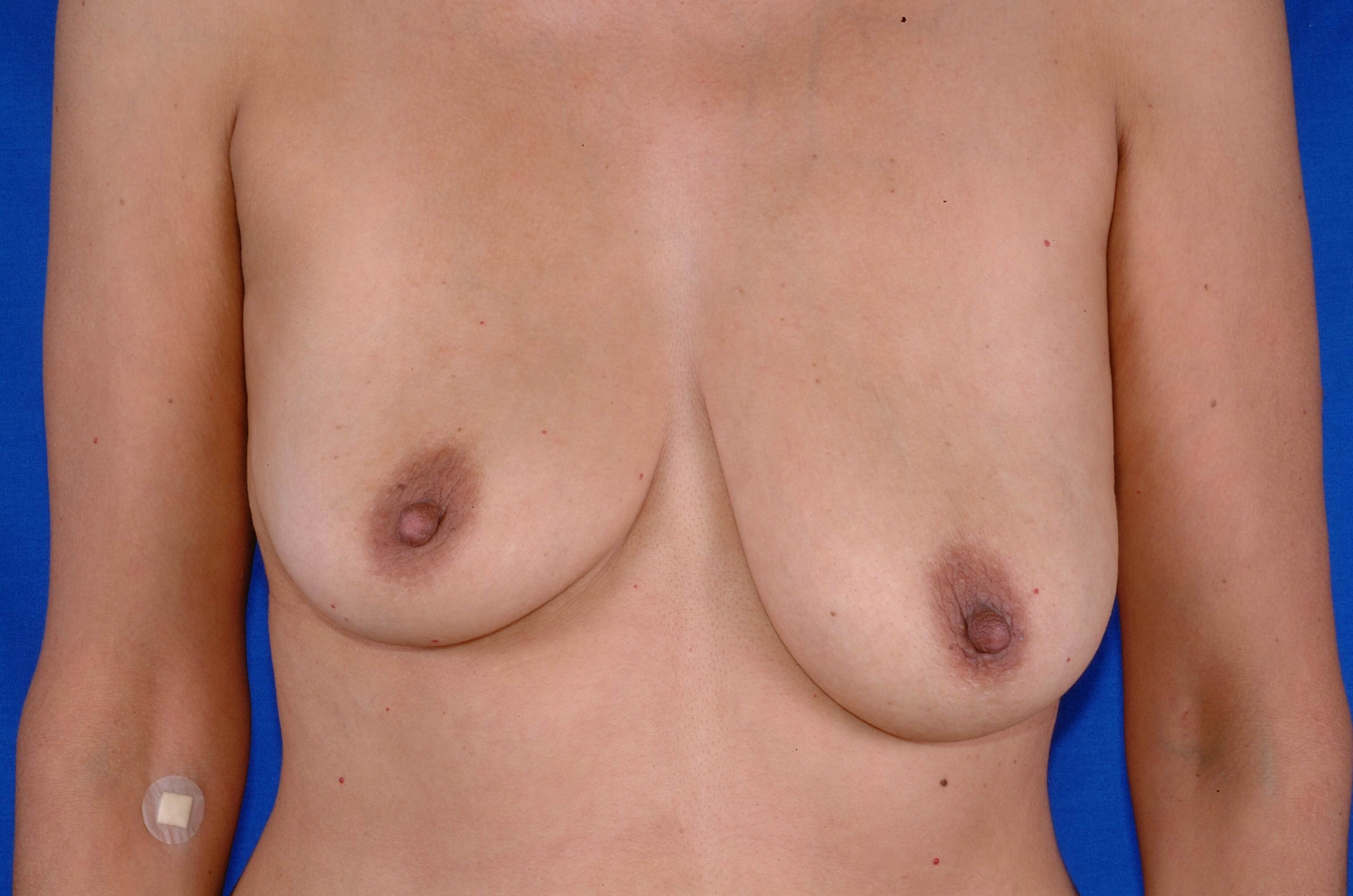 Newport Beach Breast Aug Front View Before