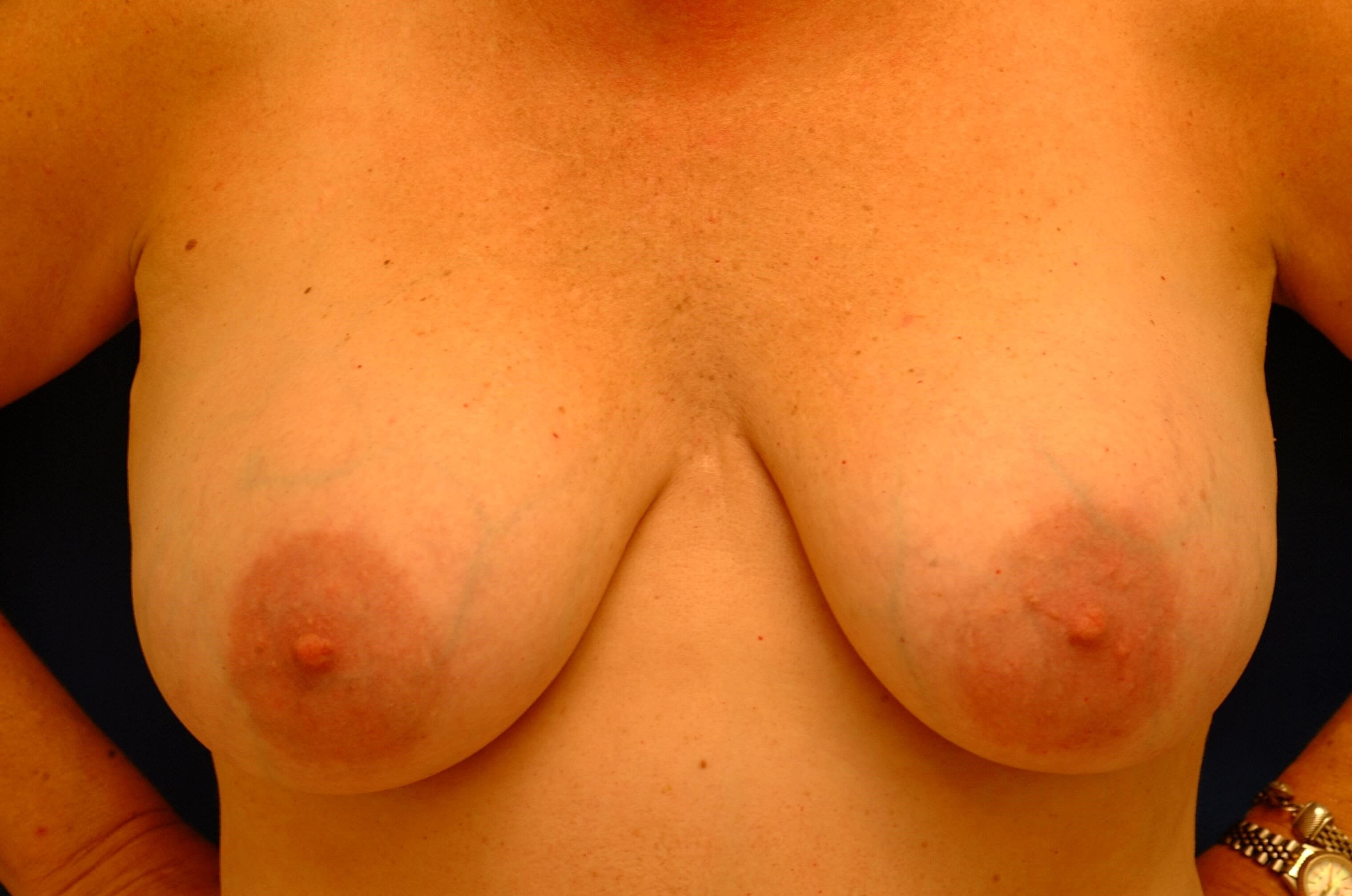 Newport Beach Breast Lift Front View Before