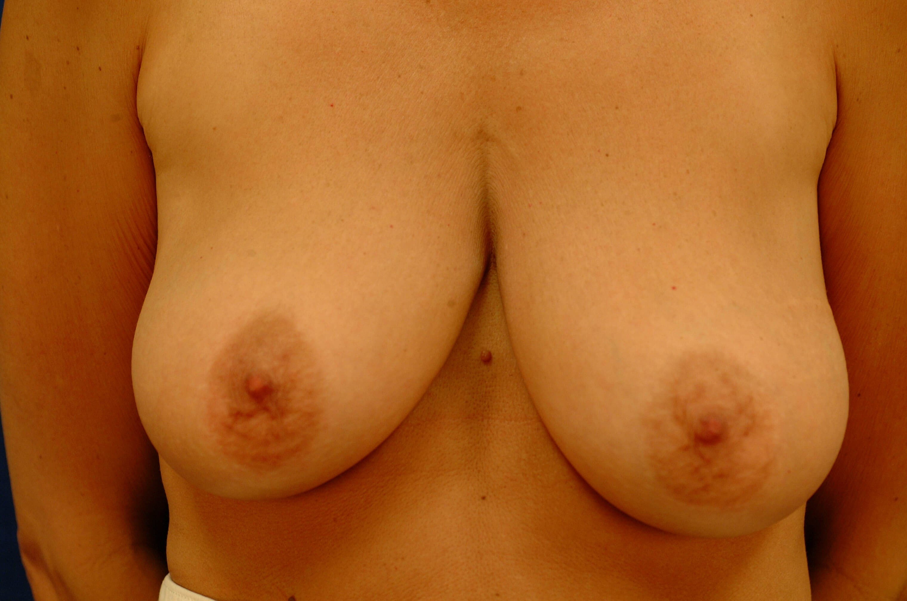 Newport Beach Breast Lift/Aug Front View Before
