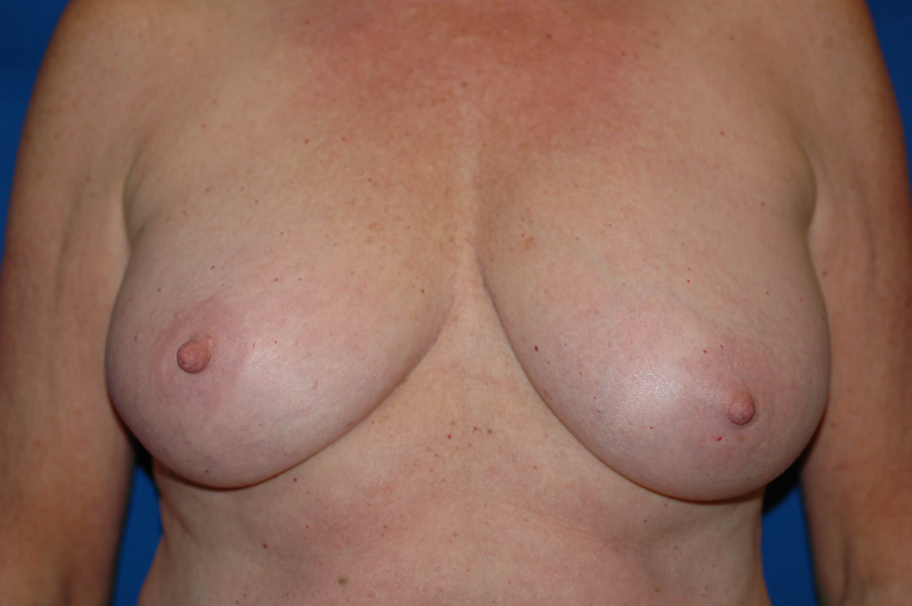 Newport Beach Breast Reduction Front View Before