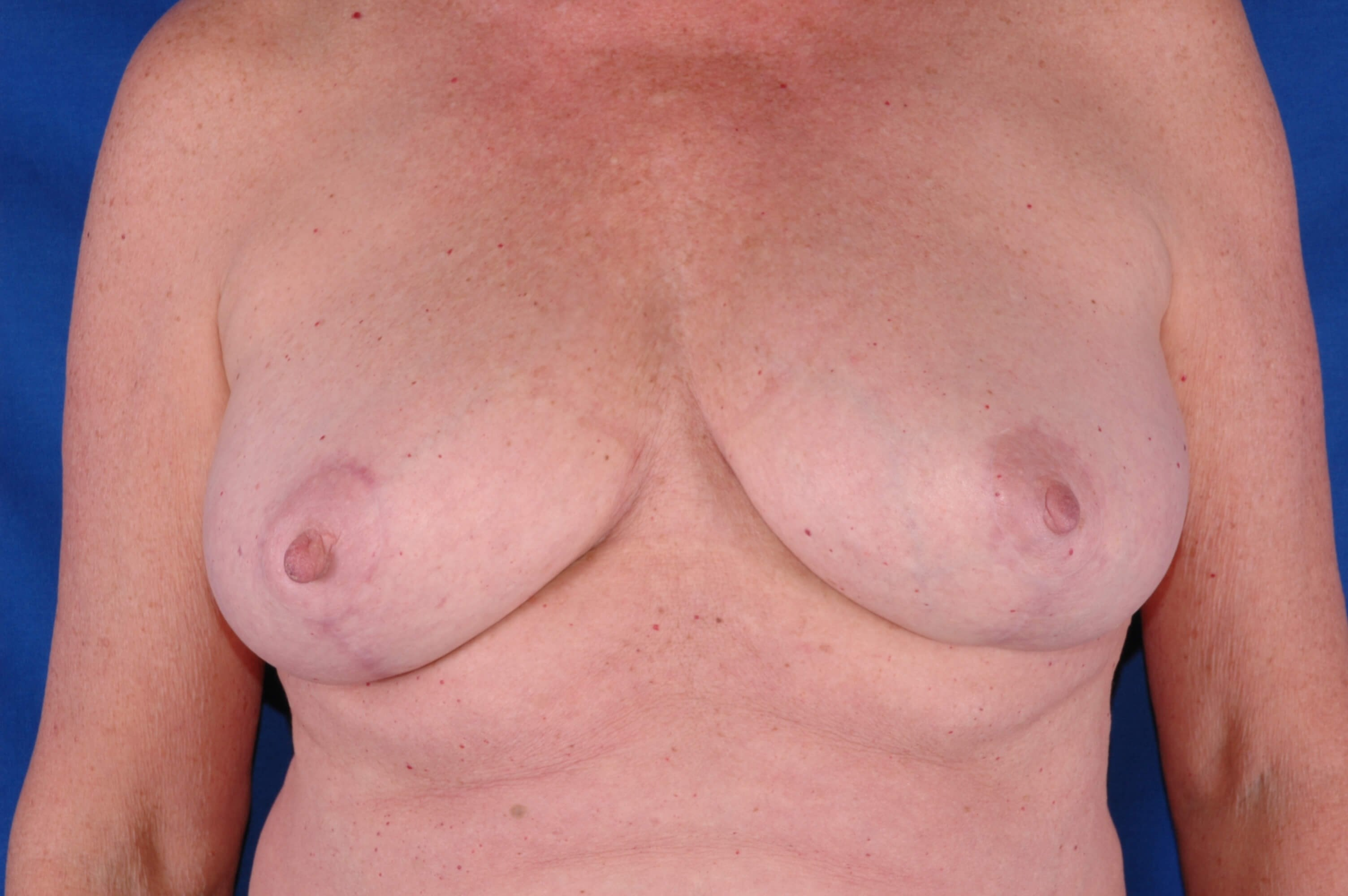 Newport Beach Breast Reduction Front View After