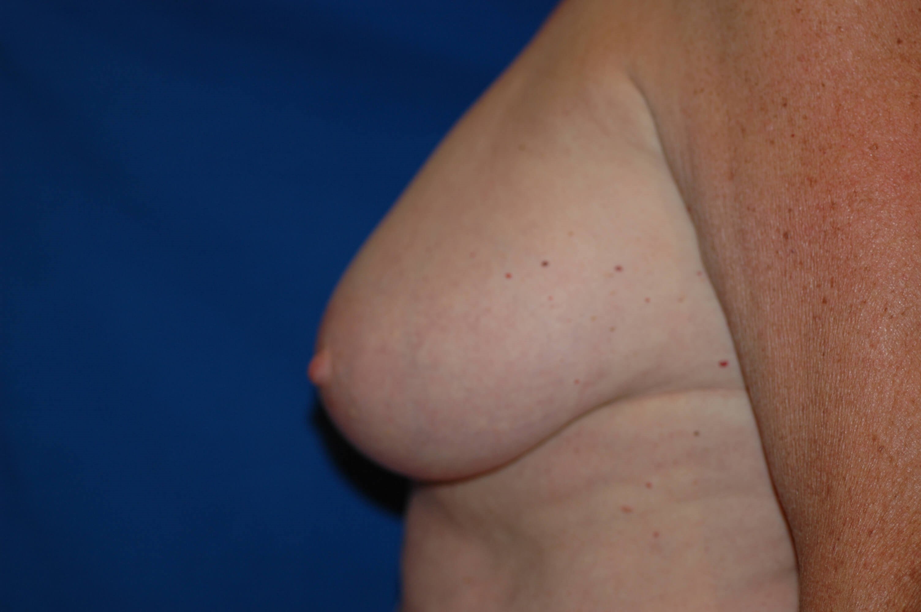 Newport Beach Breast Reduction Side View Before