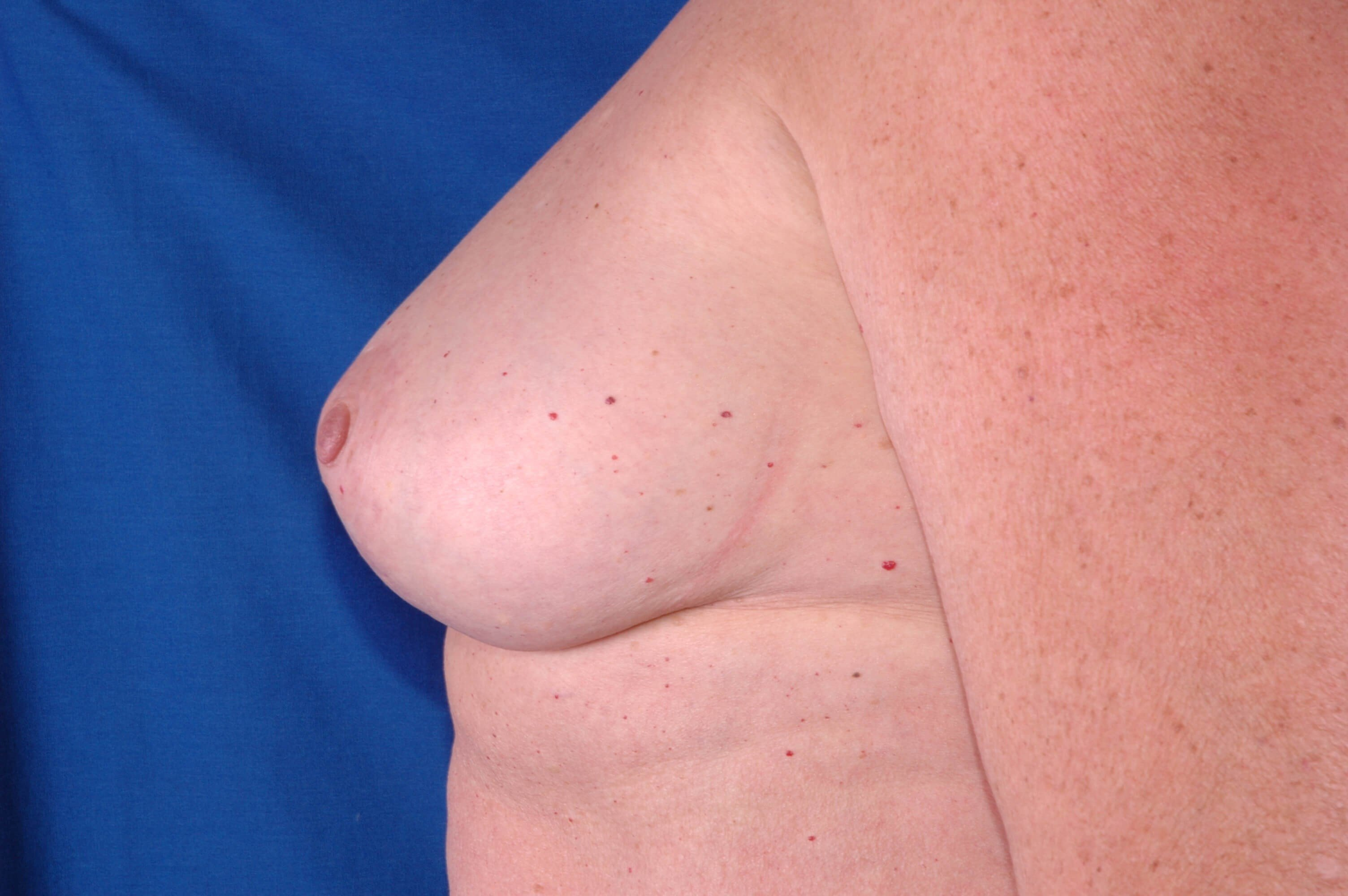 Newport Beach Breast Reduction Side View After