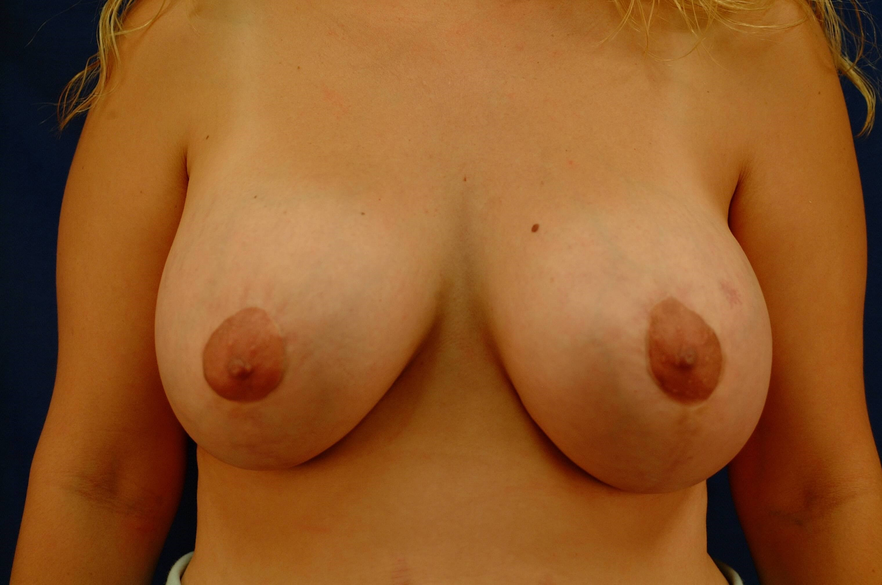 Newport Beach Breast Lift/Aug Front View After