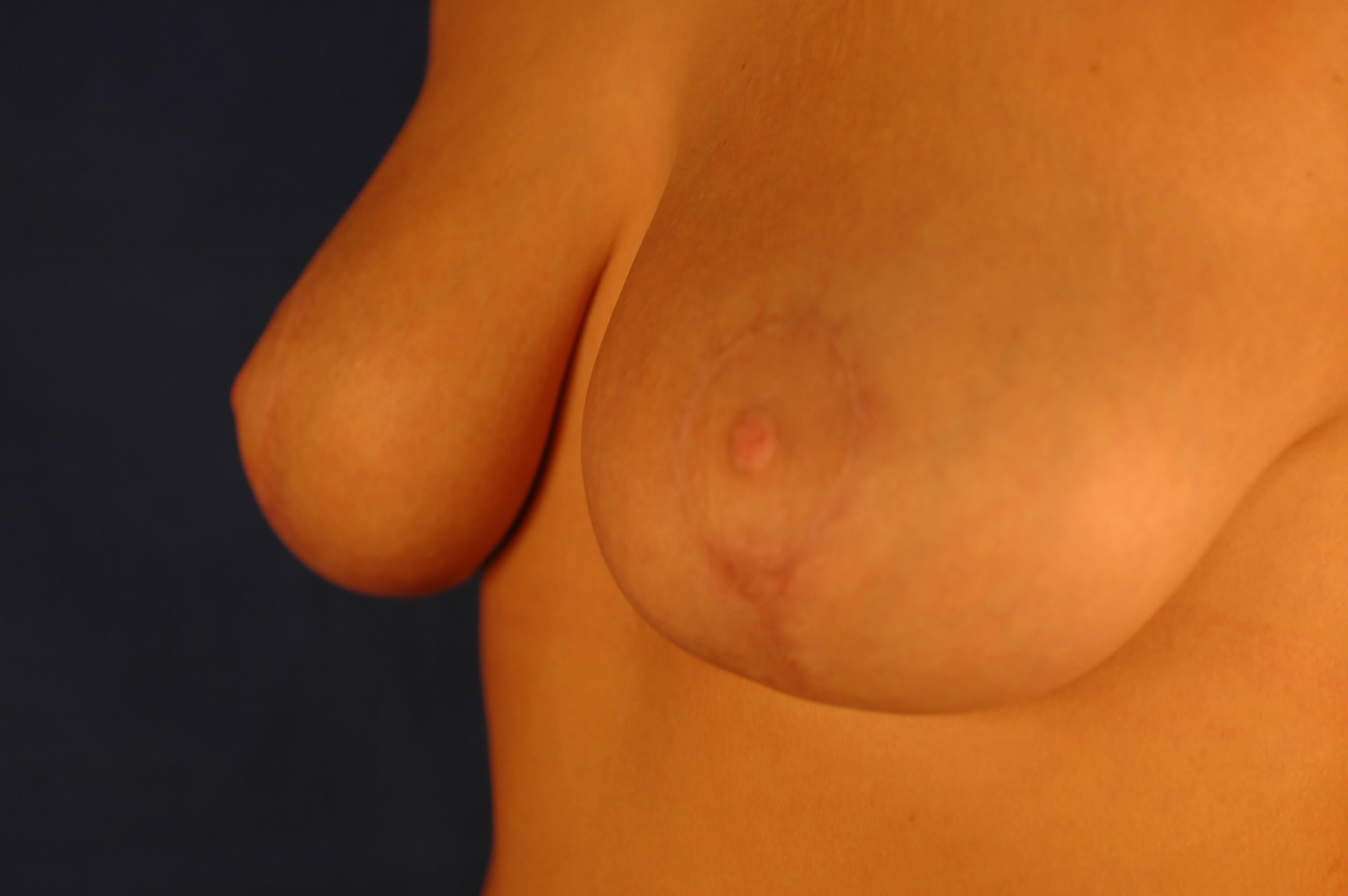Newport Beach Breast Lift Oblique View After