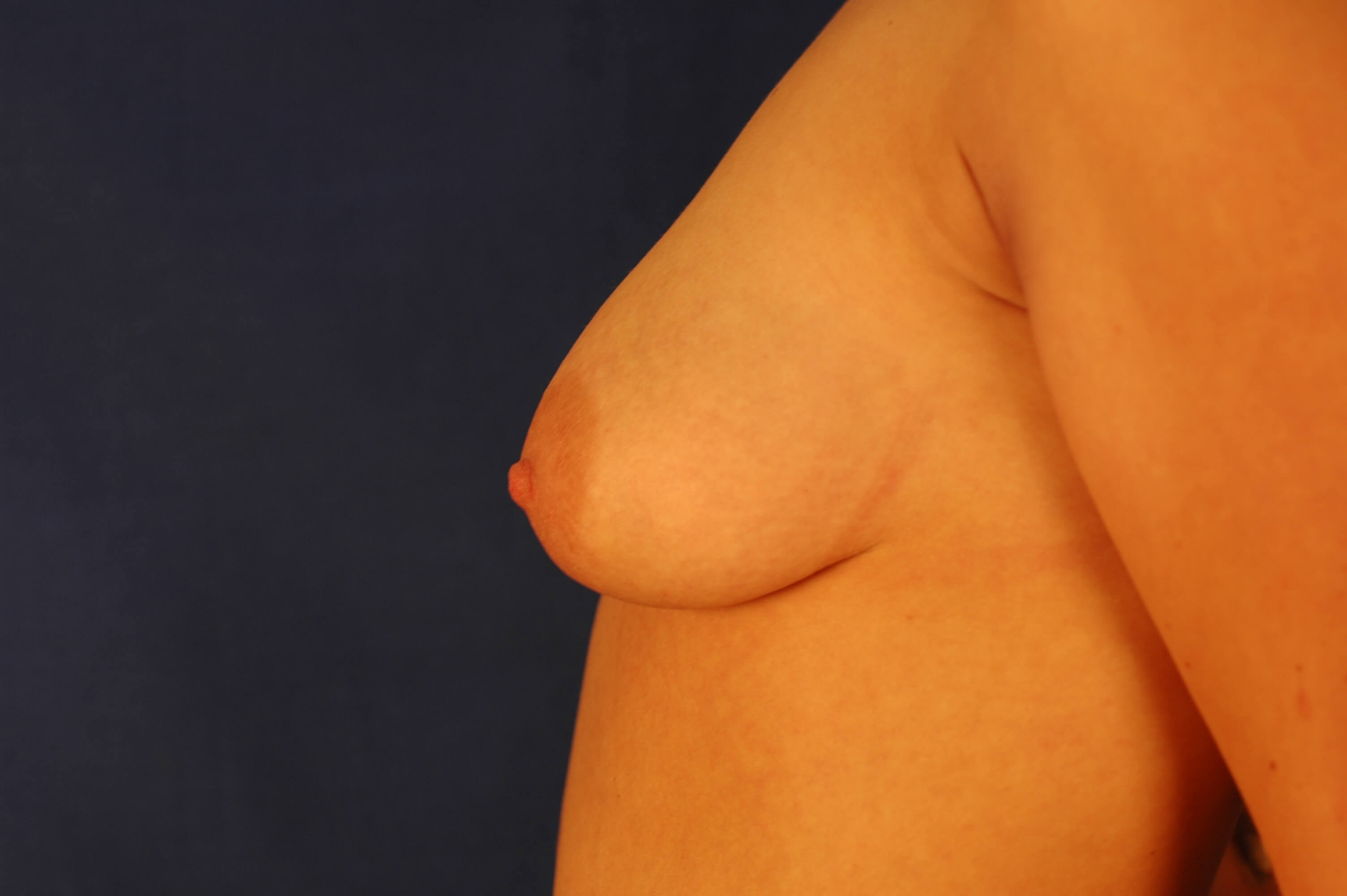 Newport Beach Breast Lift Side View Before