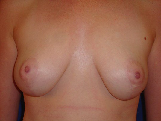 Newport Beach Breast Lift Front View After
