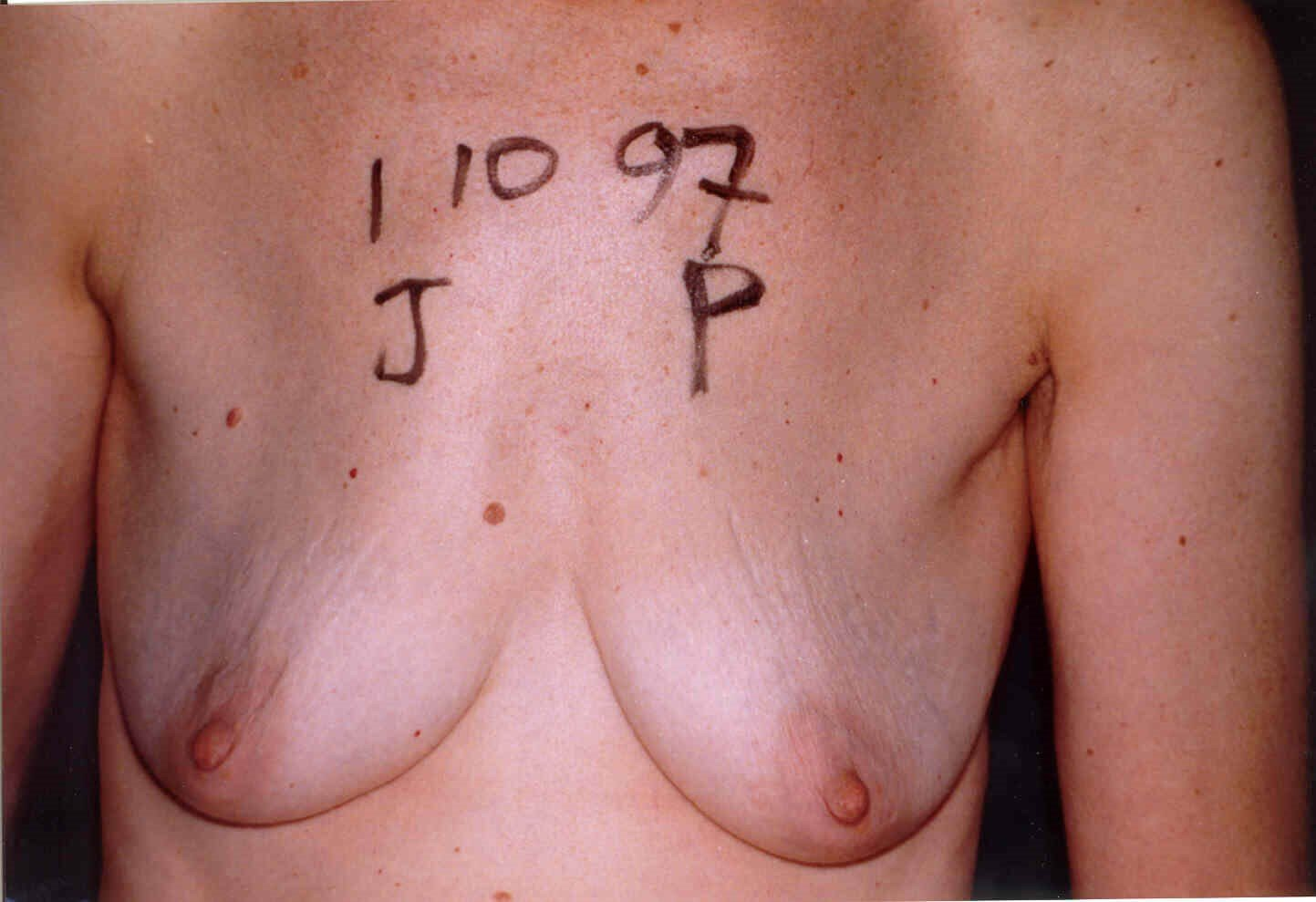 Newport Beach Breast Lift &Aug Front View Before