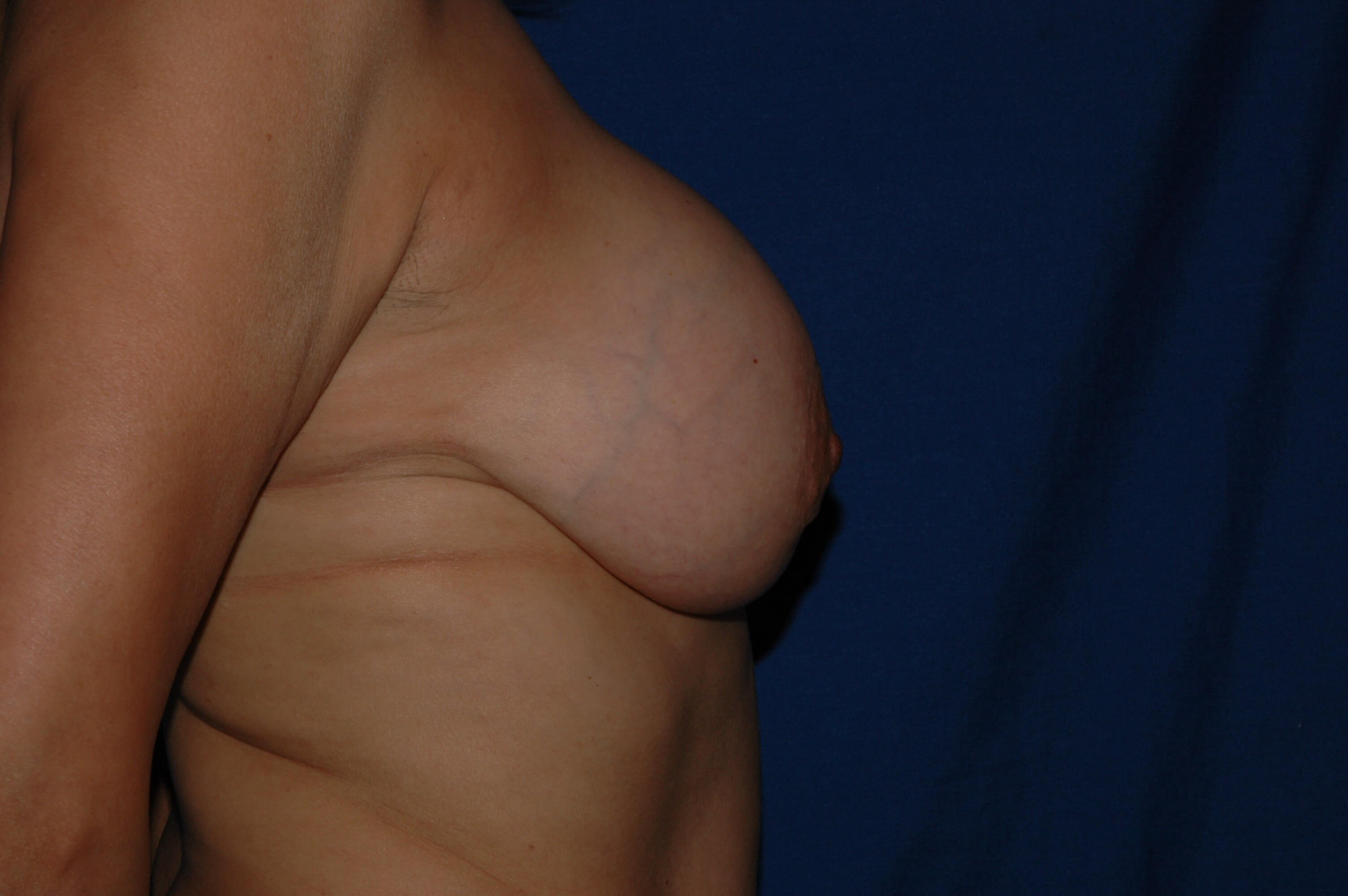 Newport Beach Breast Lift &Aug After Side View