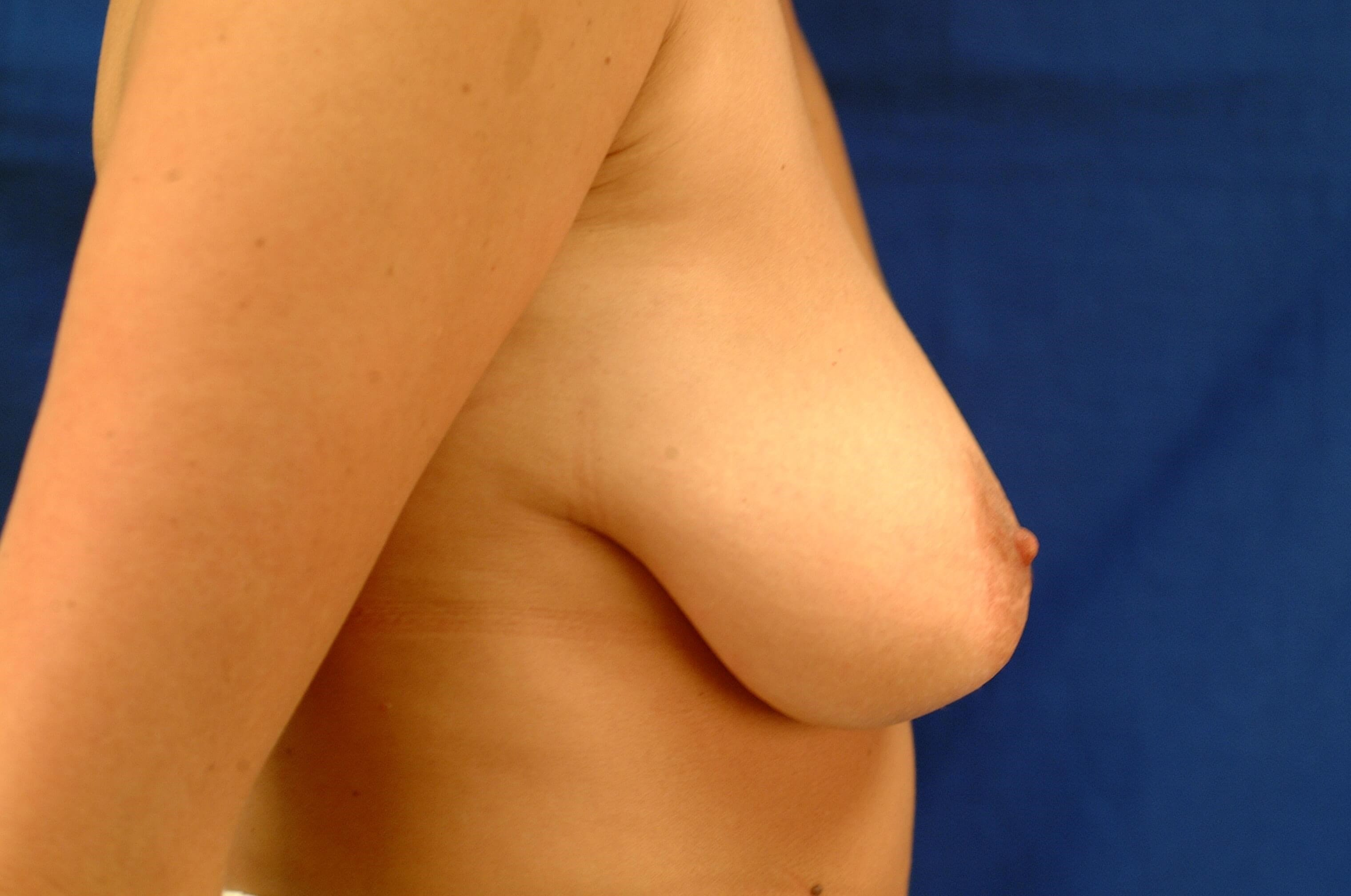 Newport Beach Breast Lift &Aug Before Side View