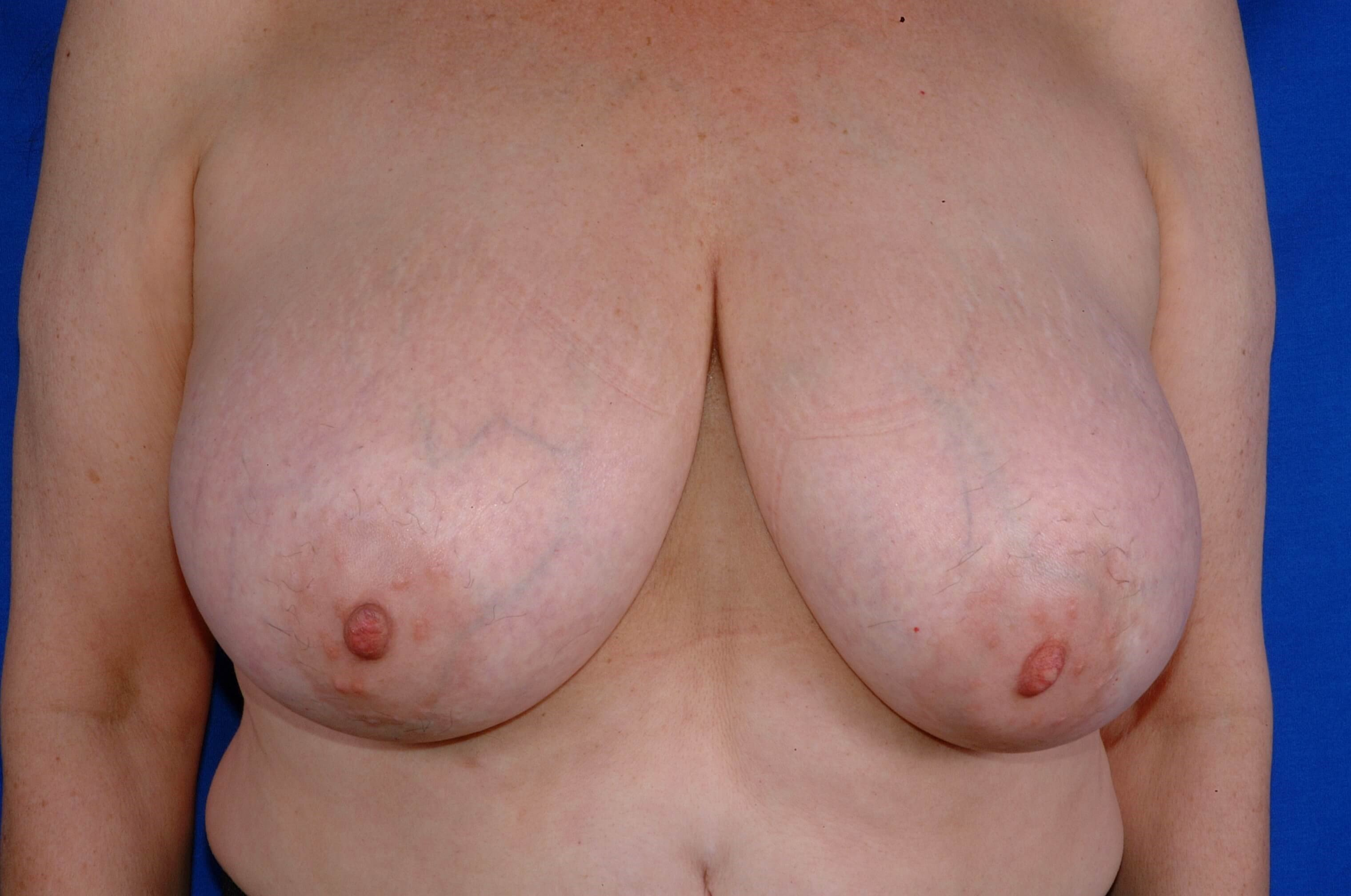 Newport Breast Lift/Explant Before Front View