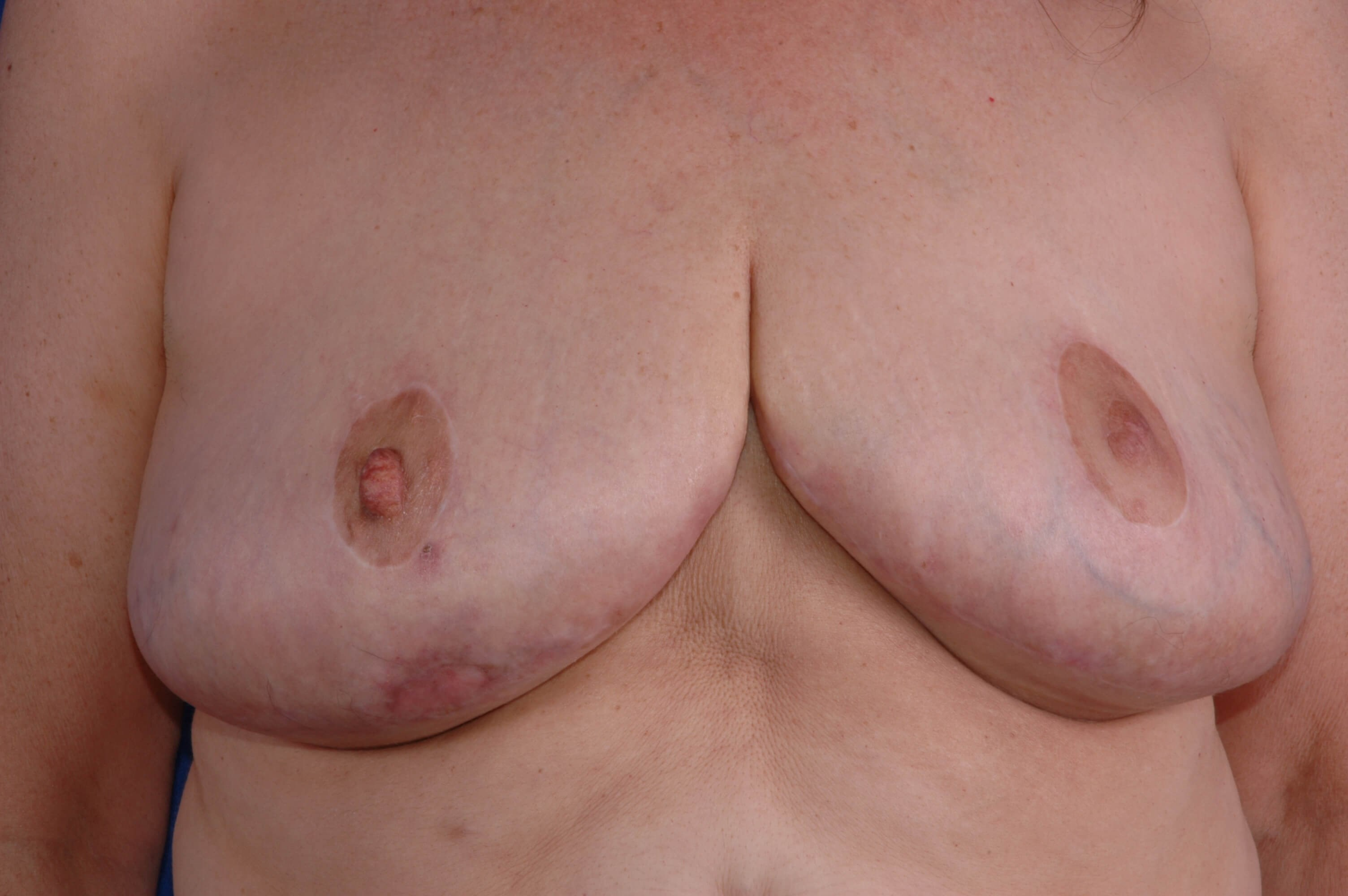 Newport Breast Lift/Explant After Front View