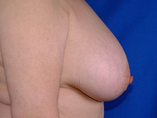 Newport Breast Lift/Explant Side View Before