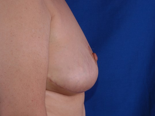 Newport Breast Lift/Explant Side View After
