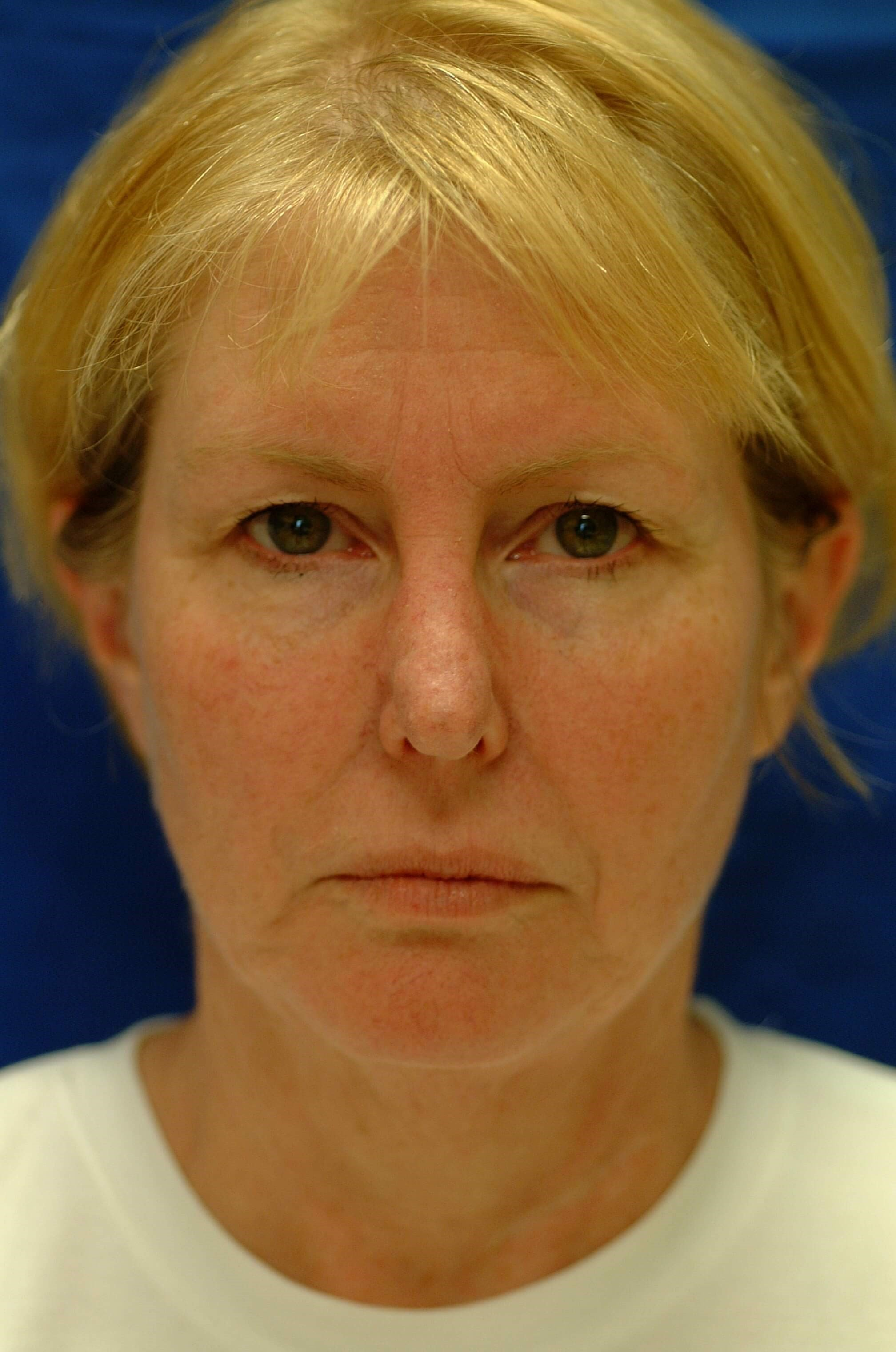 Newport Facelift/Rhinoplasty Front View Before