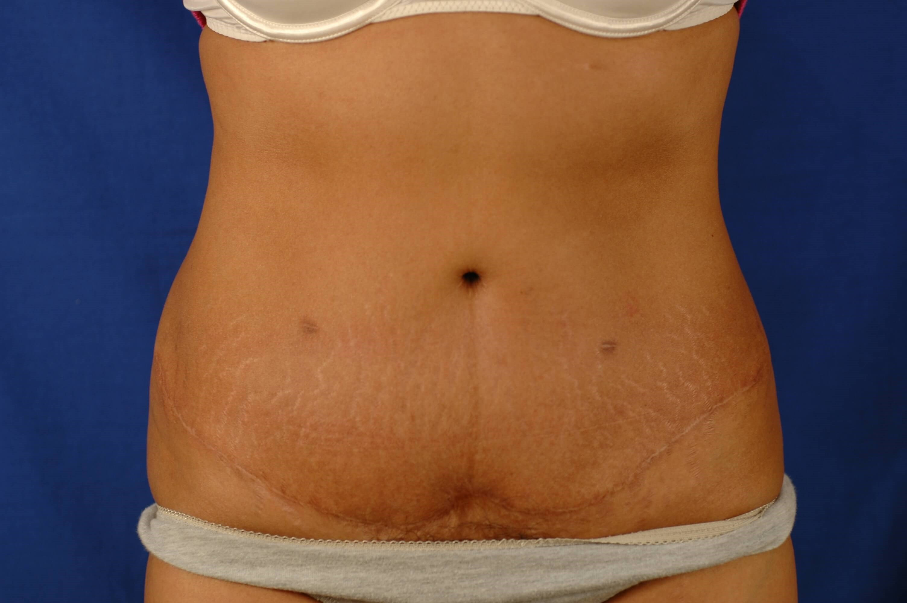 Newport Beach Tummy Tuck Front View After