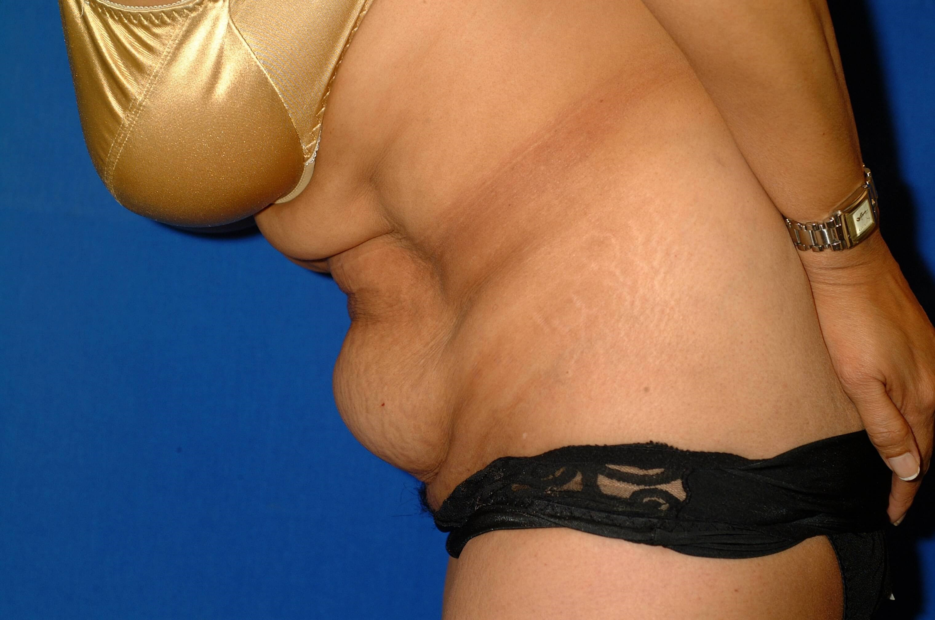 Newport Beach Tummy Tuck Side View Bent Before
