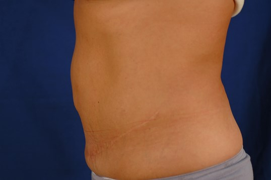 Newport Beach Tummy Tuck Side View After
