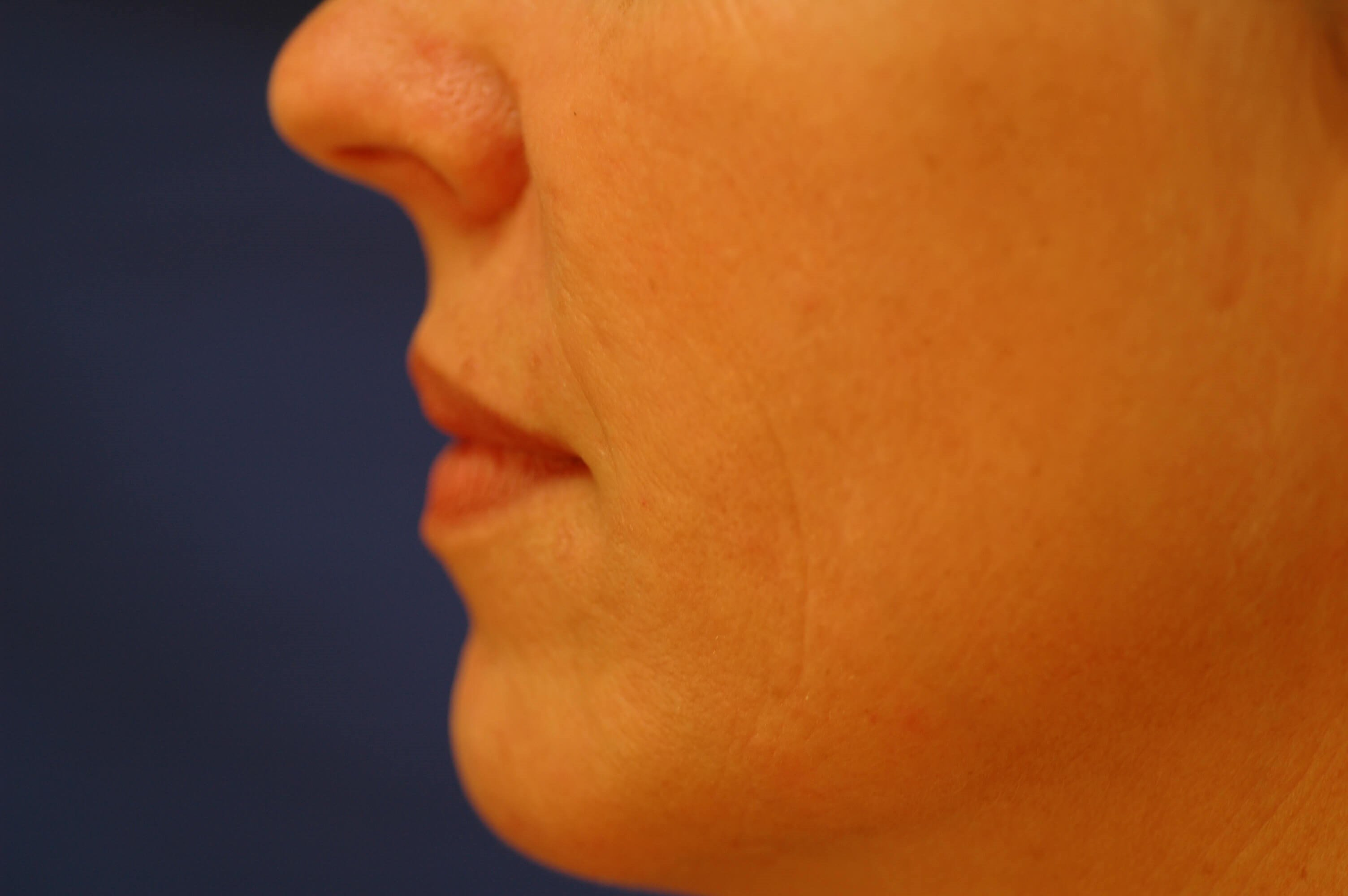 Newport Beach Microfat Graft Side View Before