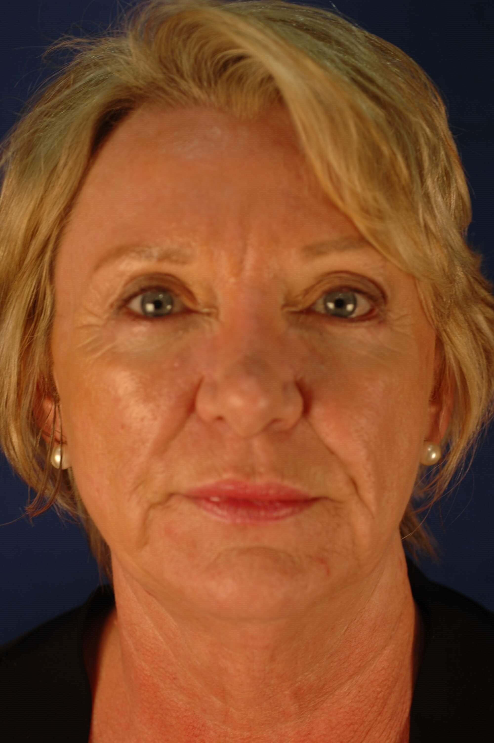 Dr. Bunkis Facial Rejuvenation After Front View