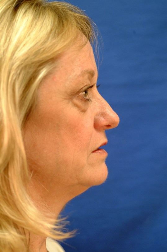 Newport Beach Brow Lift Side View Before