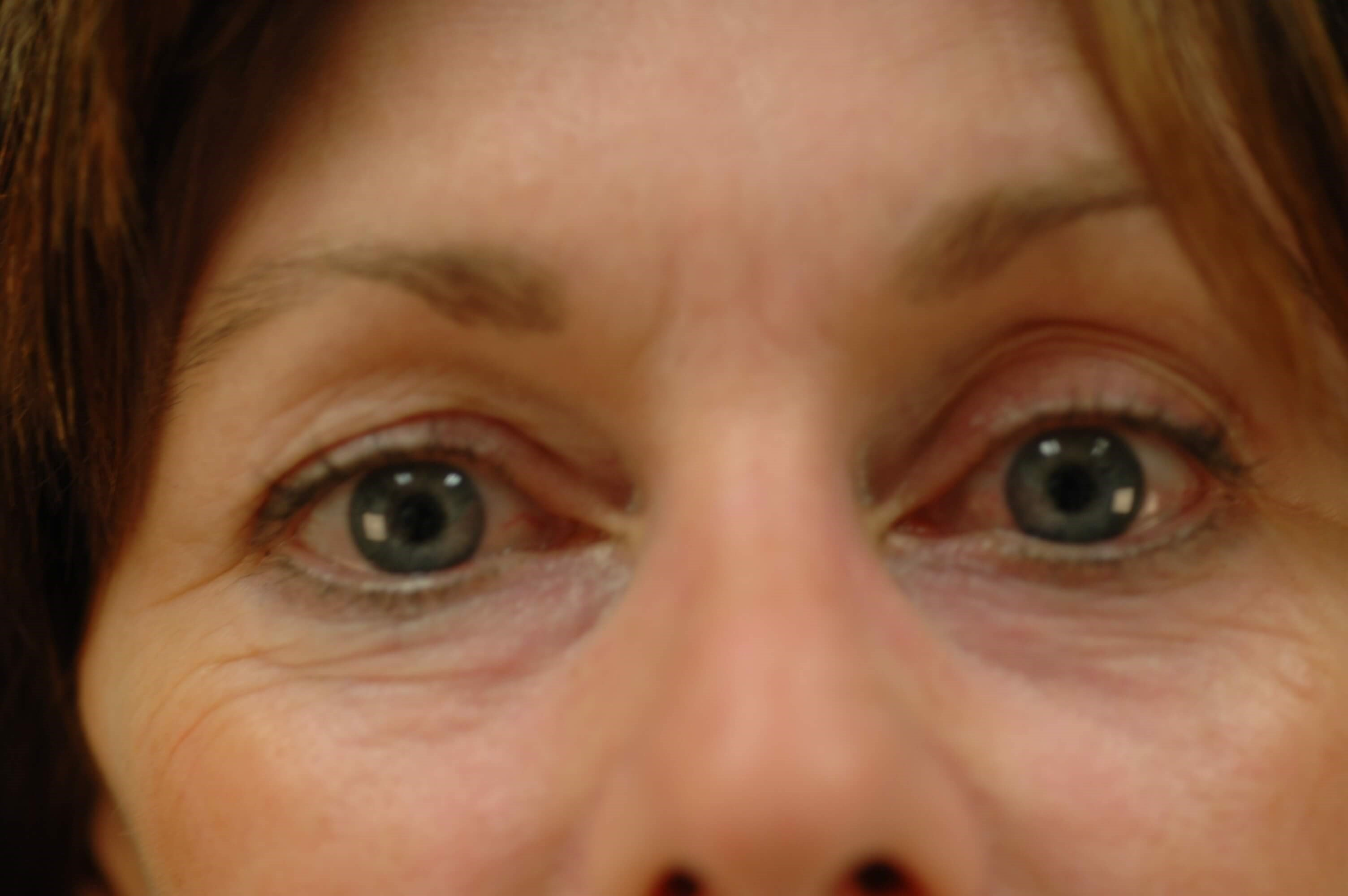 Newport Beach Brow Lift Before Front View