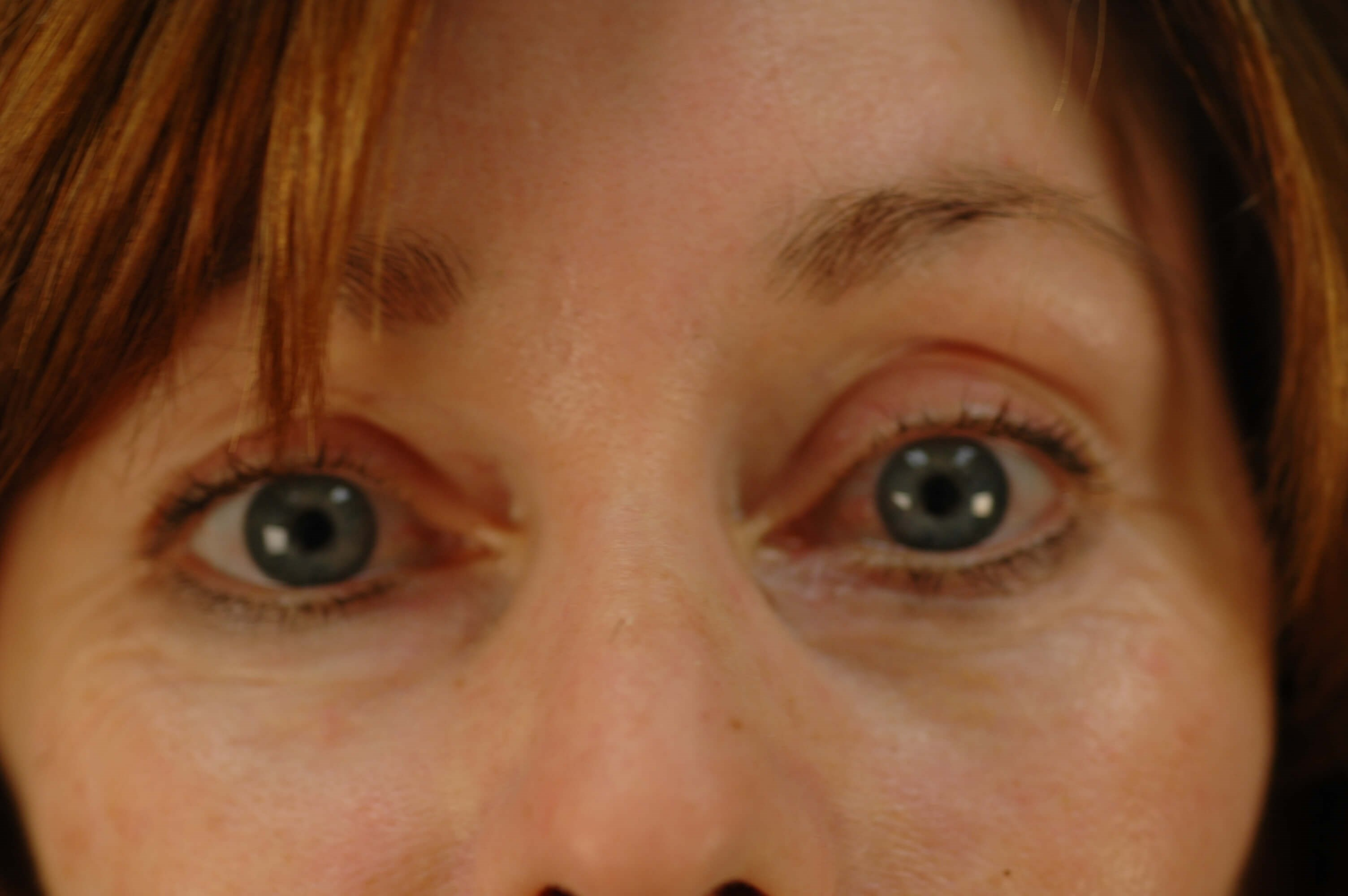 Newport Beach Brow Lift After Front View