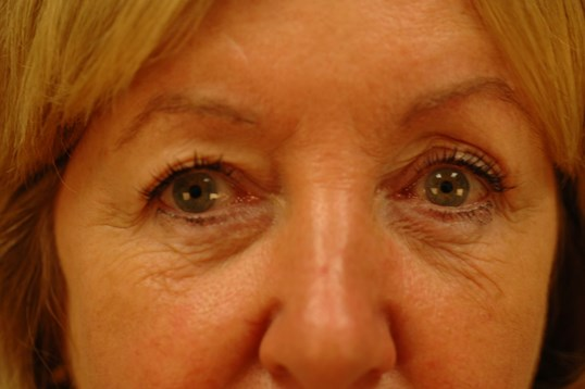 Newport Beach Brow Lift Front View Before