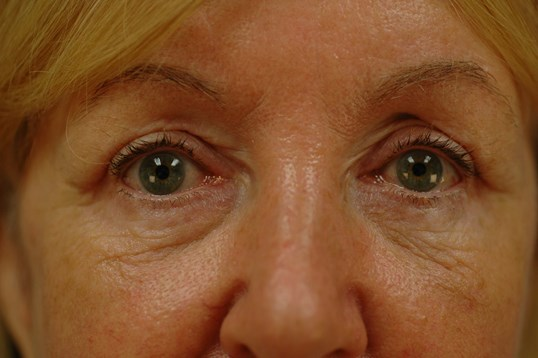 Newport Beach Brow Lift Front View After