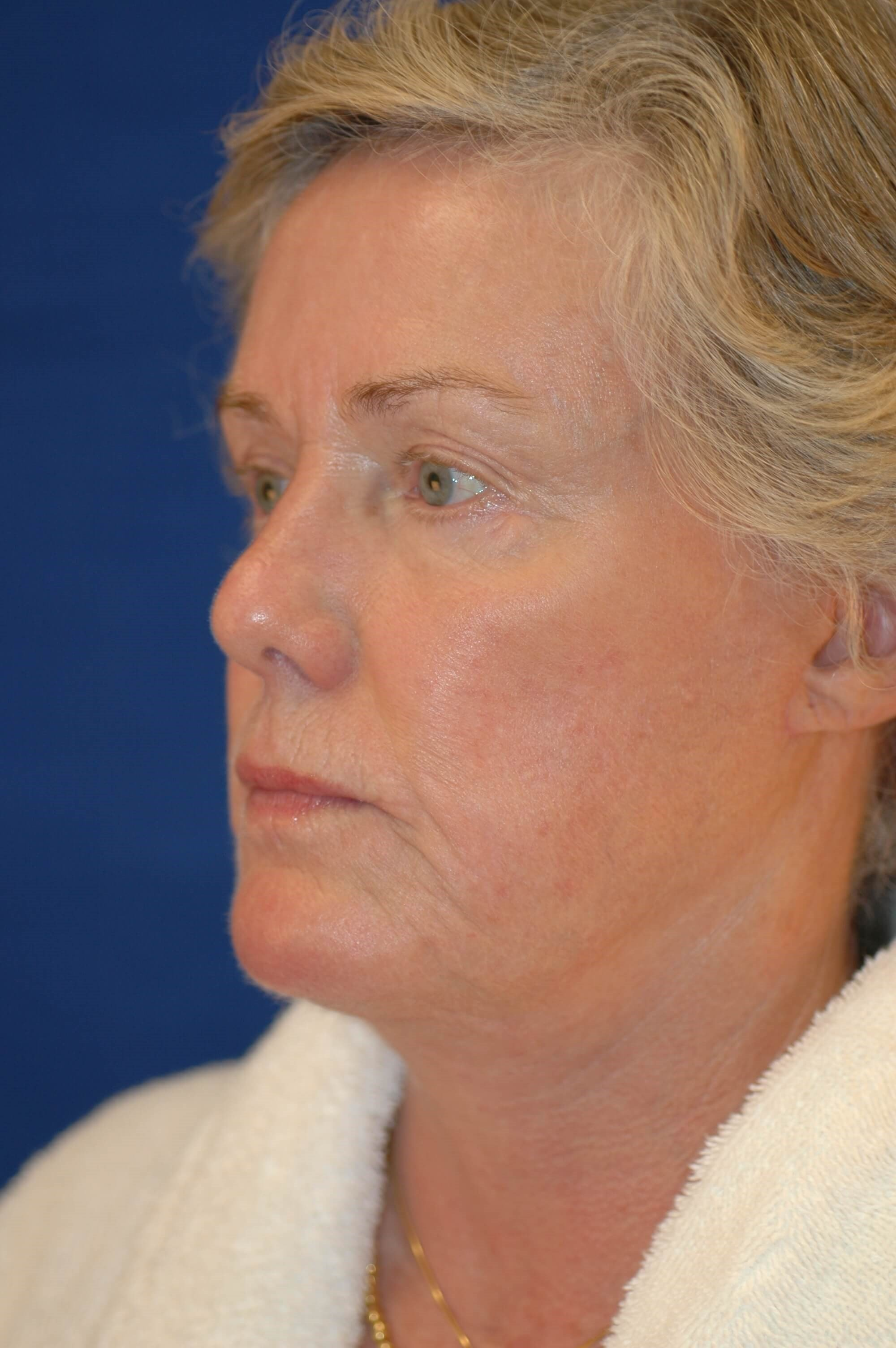 Newport Facial Rejuvenation Oblique View After