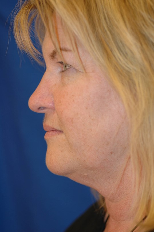 Newport Facial Rejuvenation Before Side View