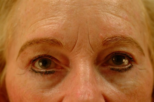 Newport Facial Rejuvenation After Front View