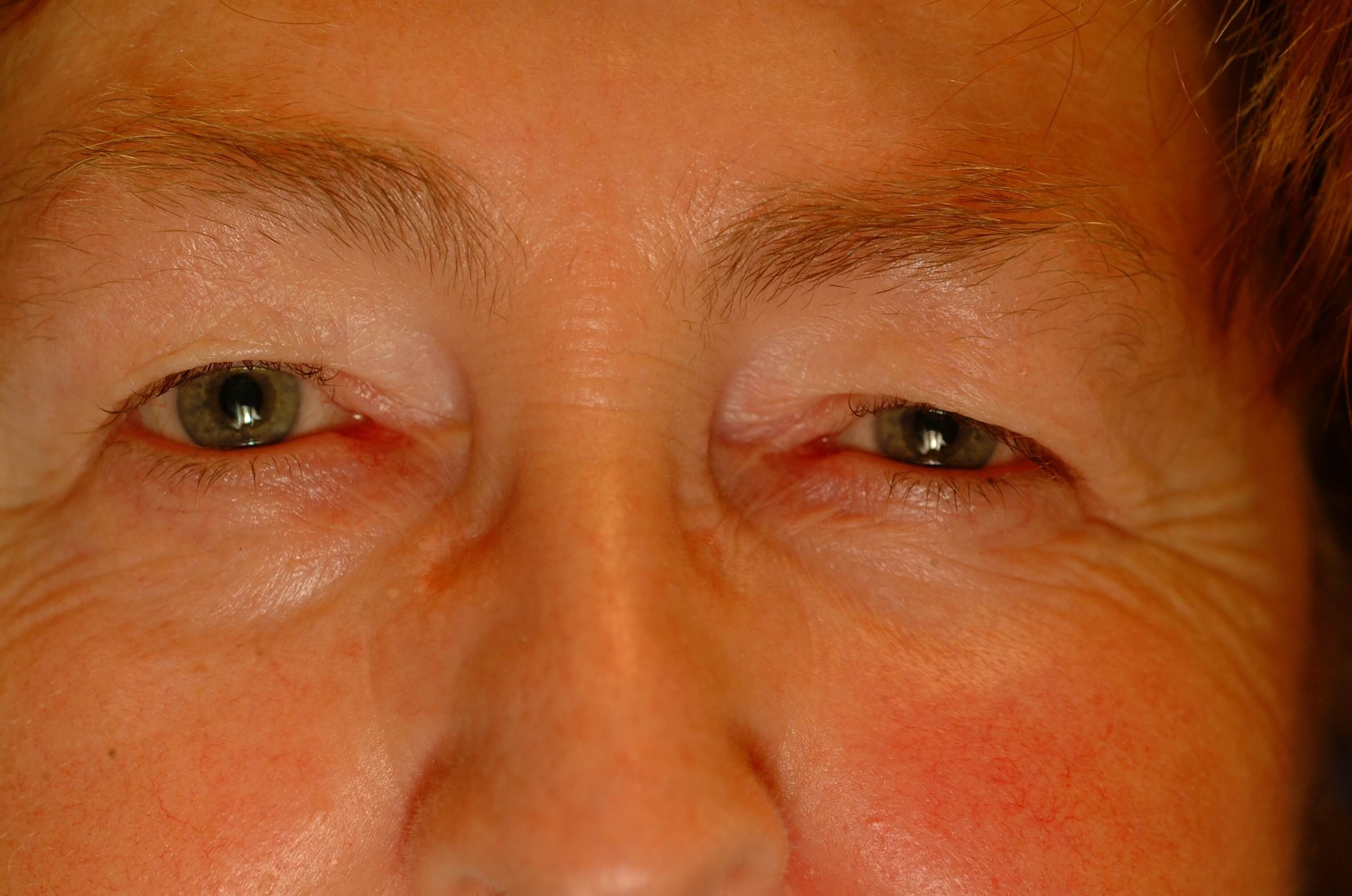 Newport Beach Blepharoplasty Front View Before