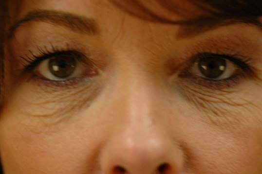 Newport Beach Blepharoplasty Before Front View