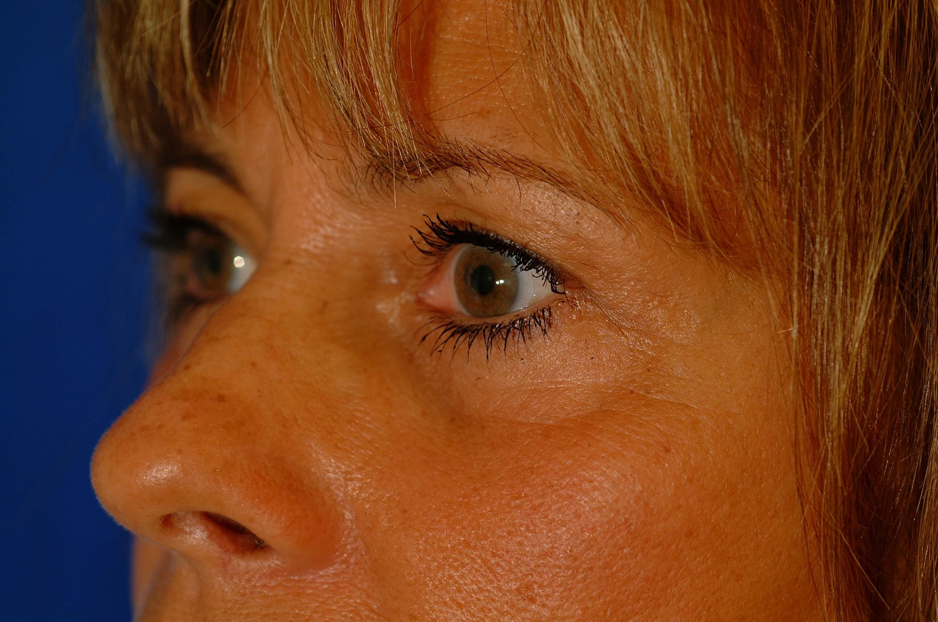 Newport Beach Blepharoplasty Oblique View After