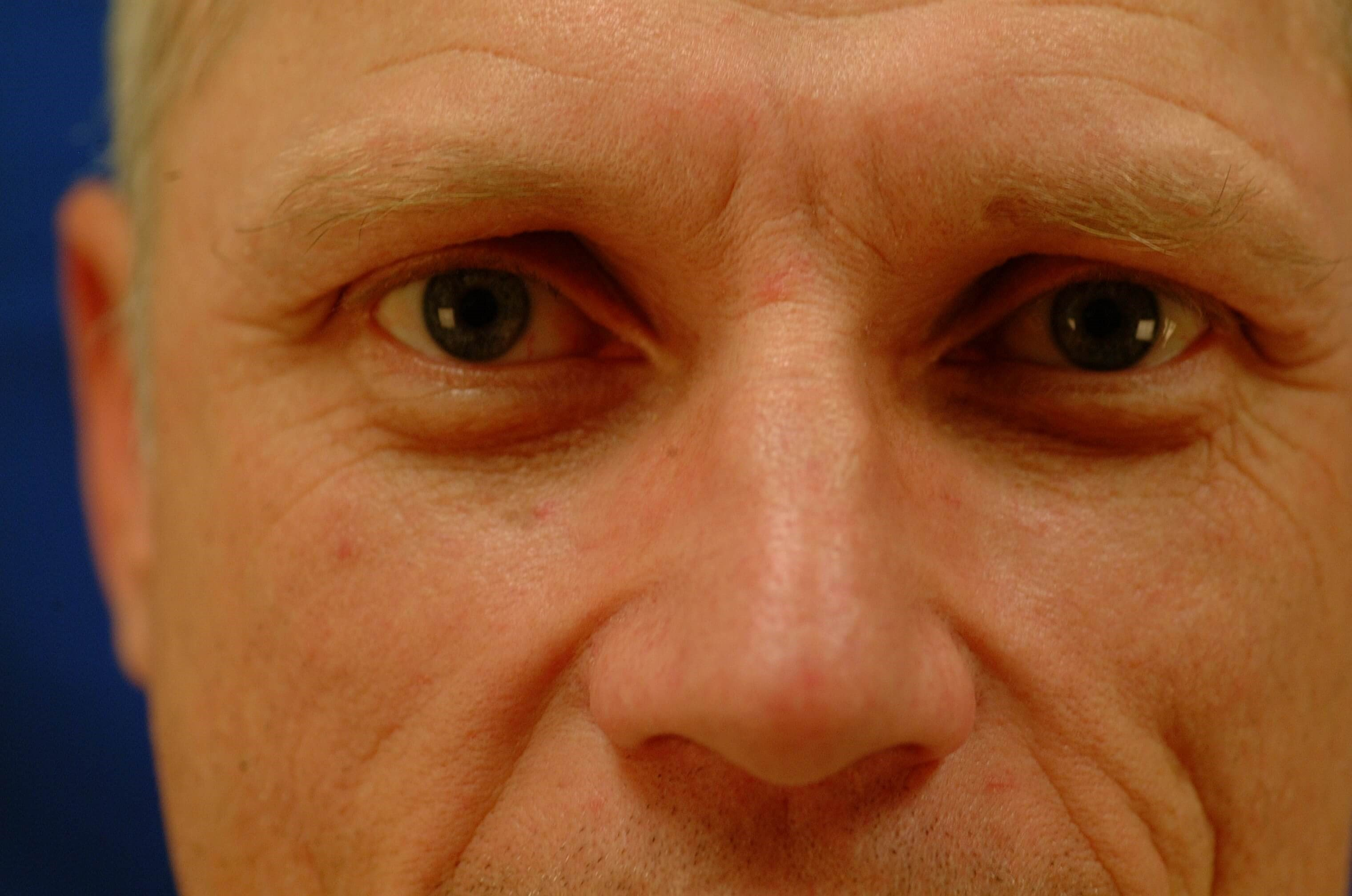 Newport Beach Blepharoplasty Before