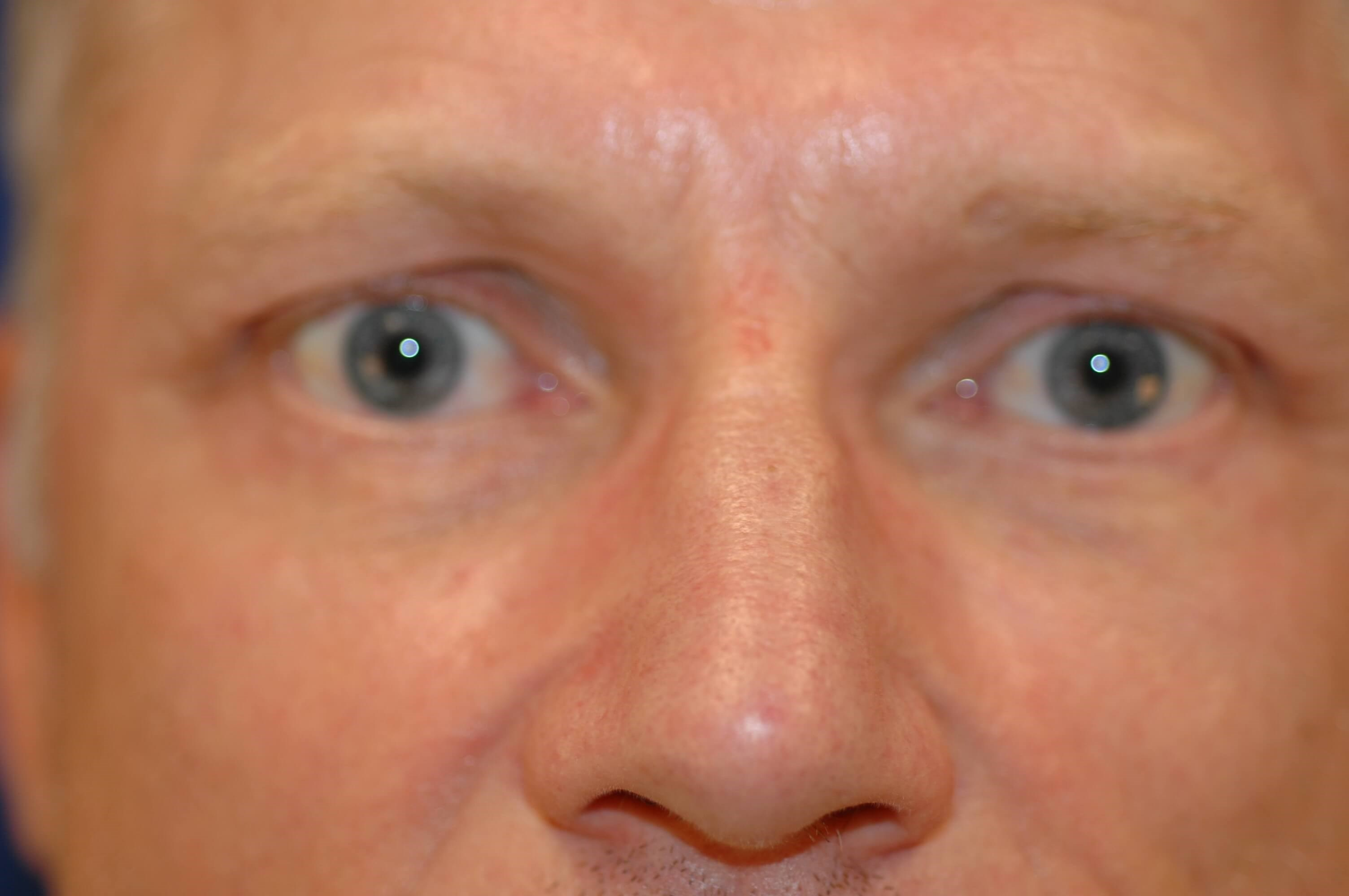 Newport Beach Blepharoplasty After