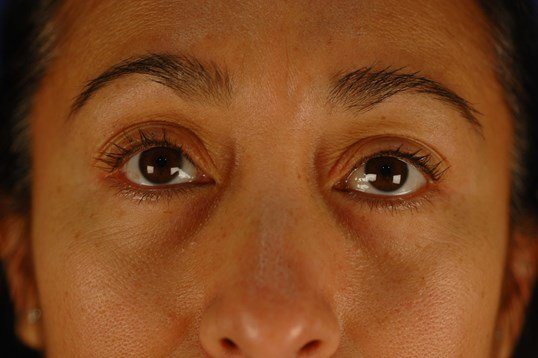 Newport Beach Blepharoplasty Front View After