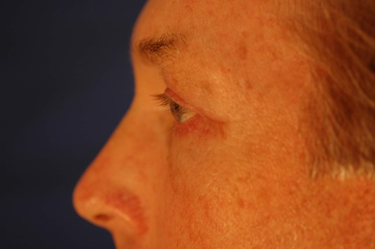 Newport Beach Blepharoplasty Side View After