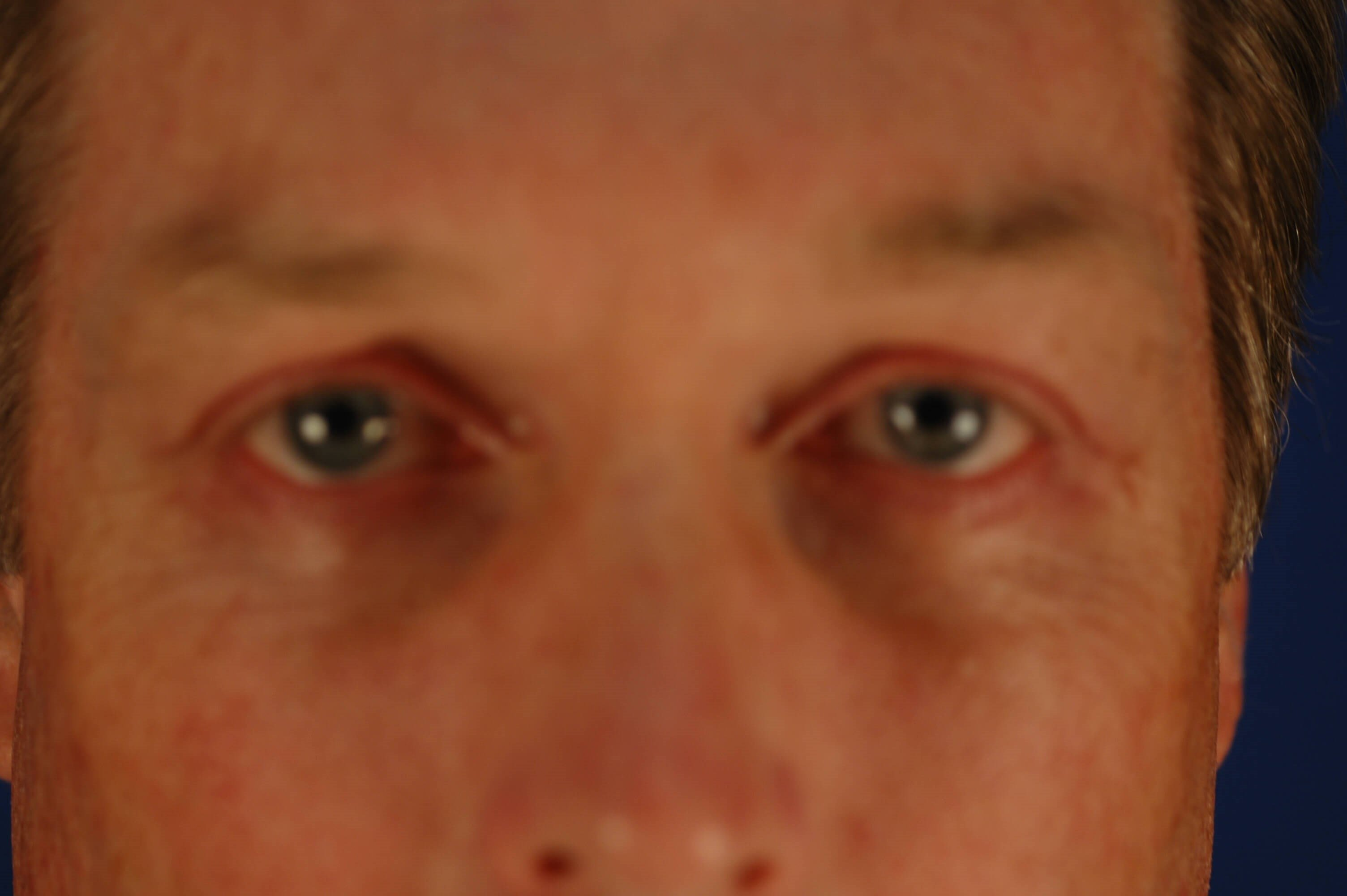 Newport Beach Blepharoplasty After Front View