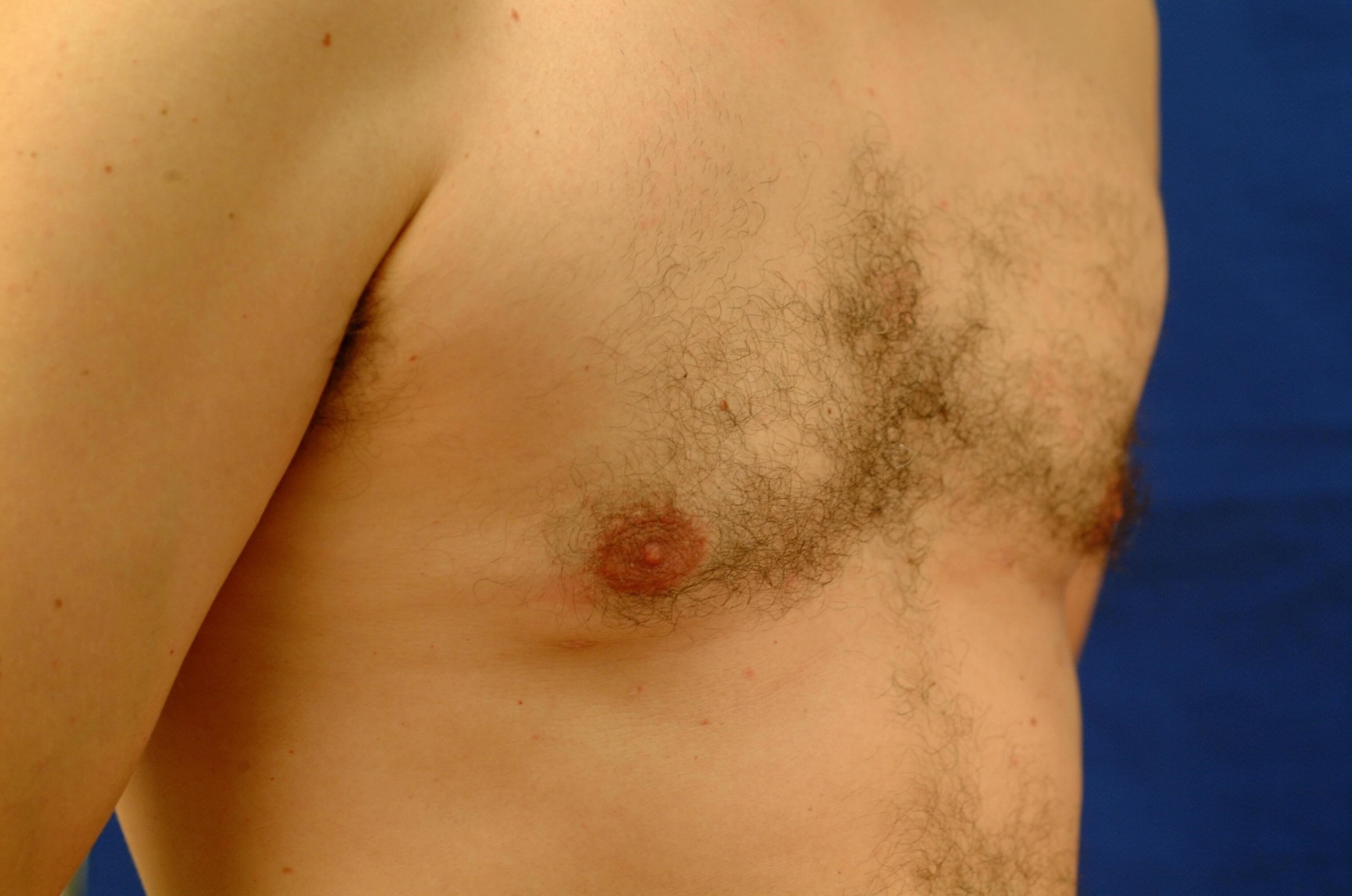 Newport Beach Gynecomastia Oblique View After