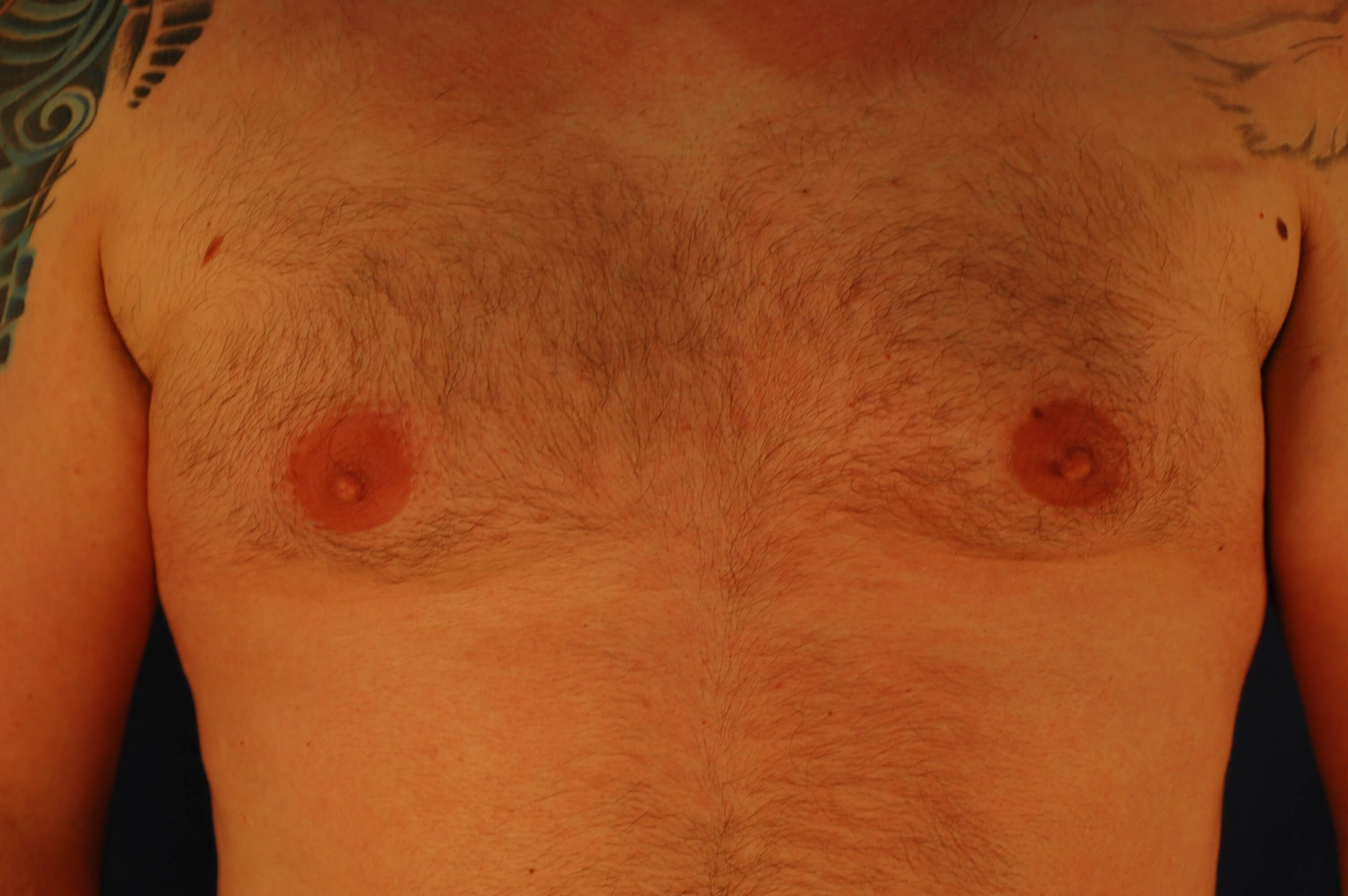 Newport Beach Gynecomastia Front View Before