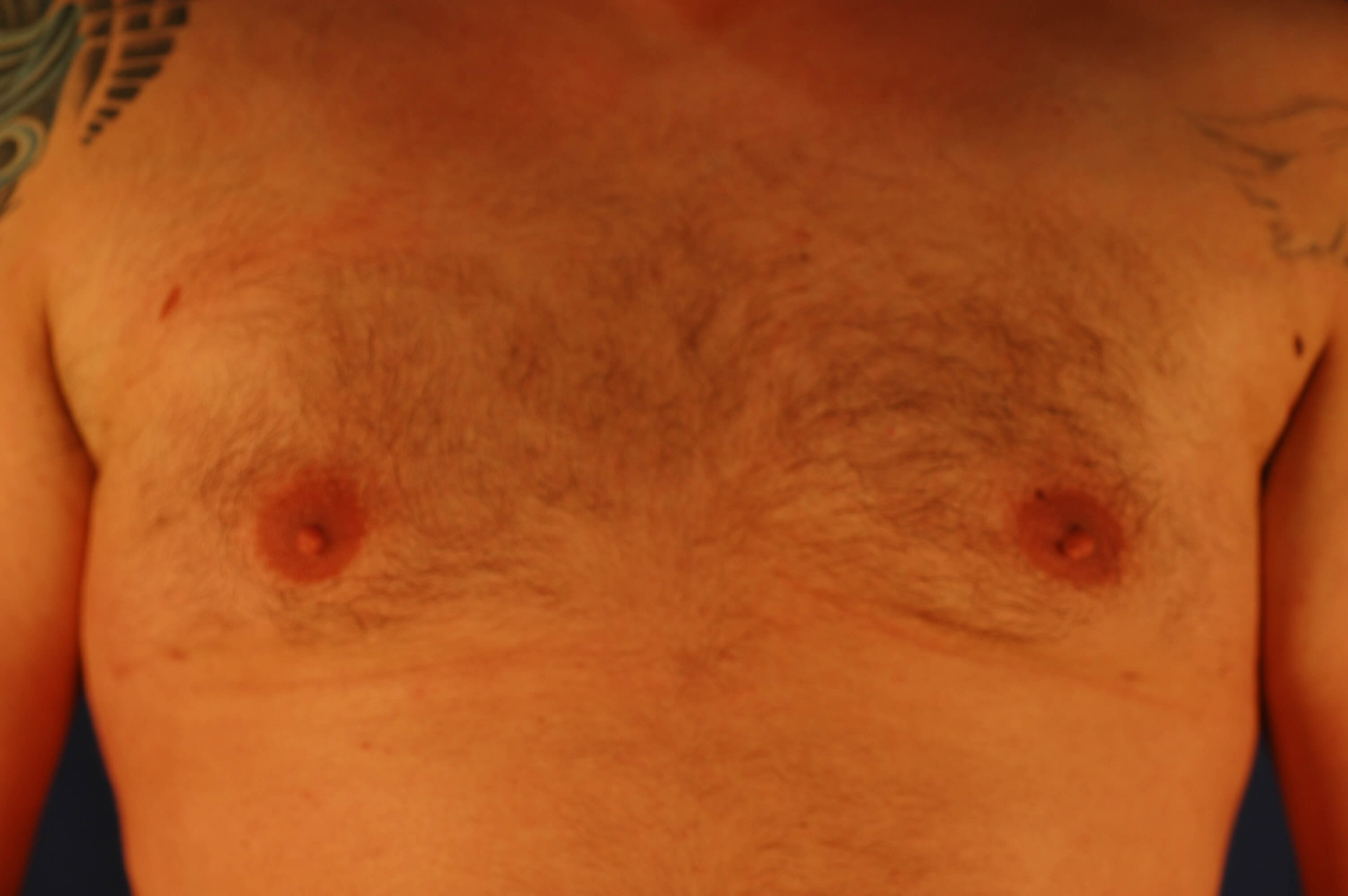 Newport Beach Gynecomastia Front View After