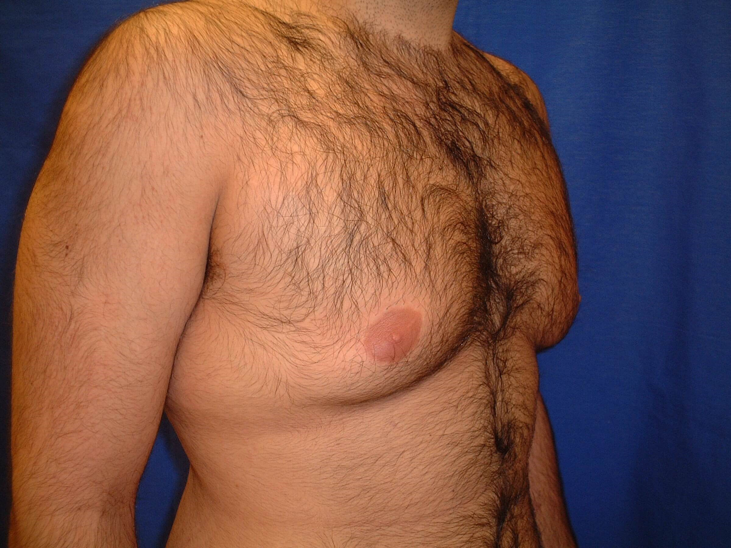 Newport Beach Gynecomastia Oblique View Before