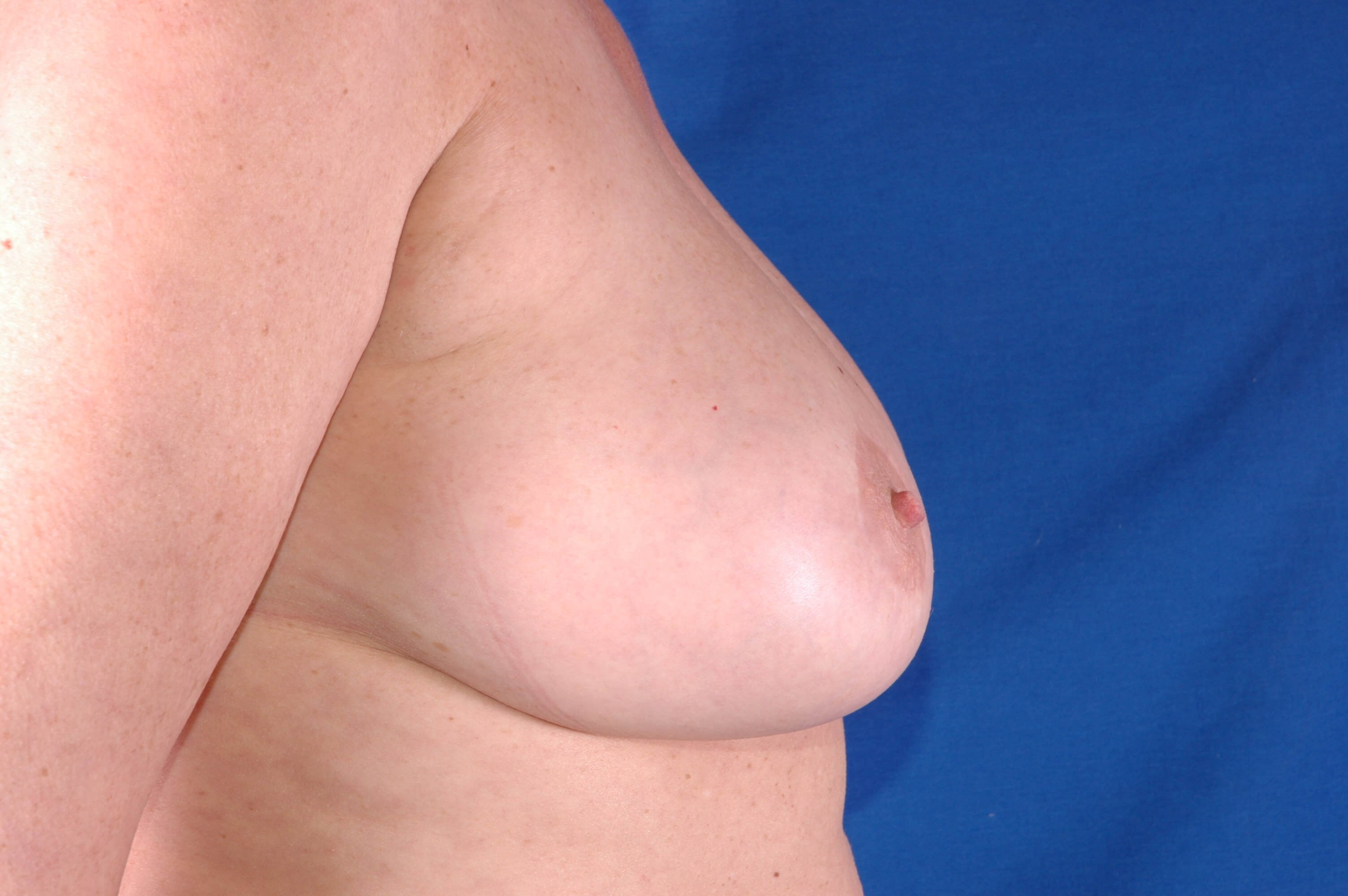 Newport Beach Breast Lift Side View After