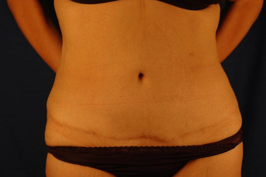 Newport Beach Post Weight Loss After Front View